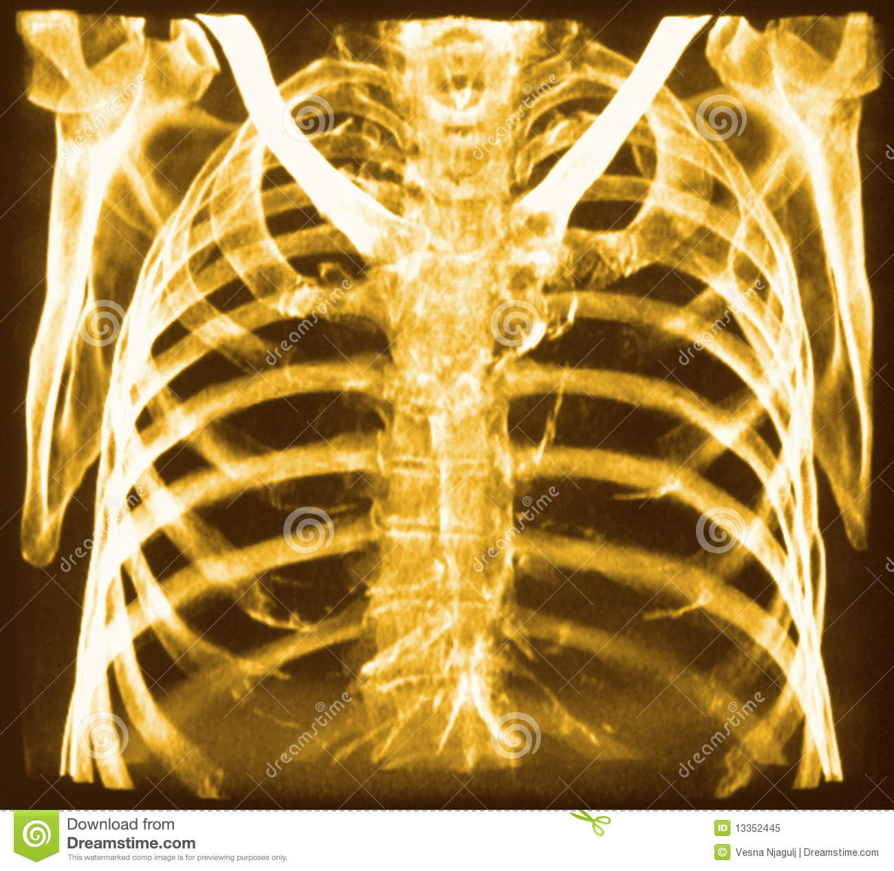Ct Of Chest Bones Stock Image Image Of Scan Radiology 13352445
