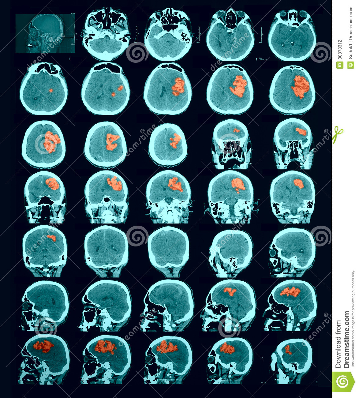 CT Scan Of The Brain Hemorrhagic Stroke Stock