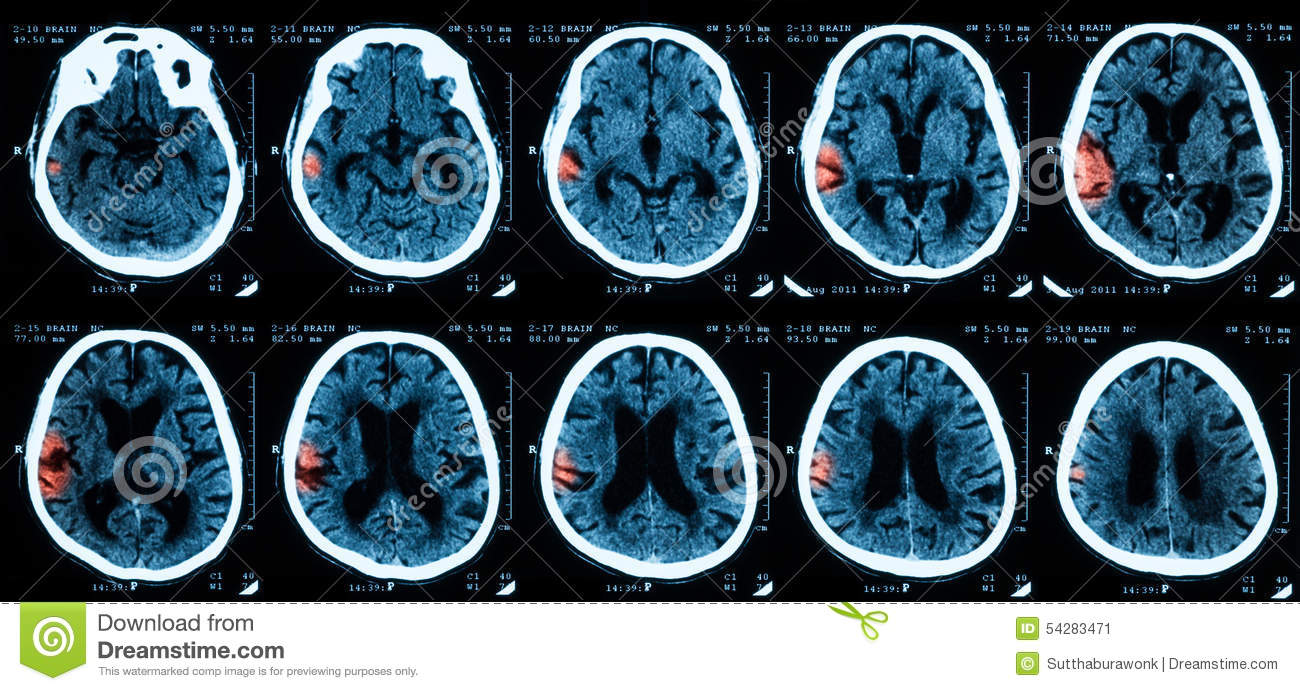 CT scan of the brain. stock image. Image of head, medicine - 54283471
