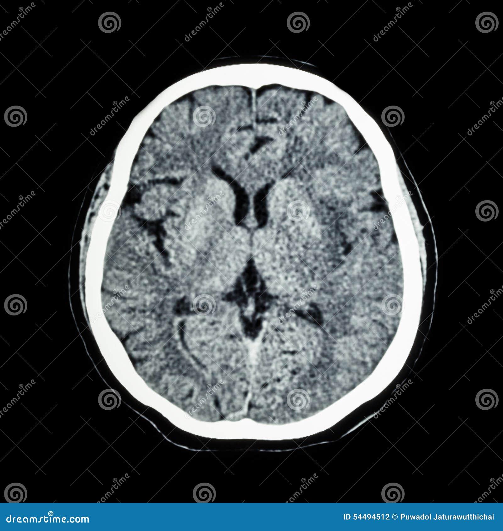 Cat Disease Human Brain