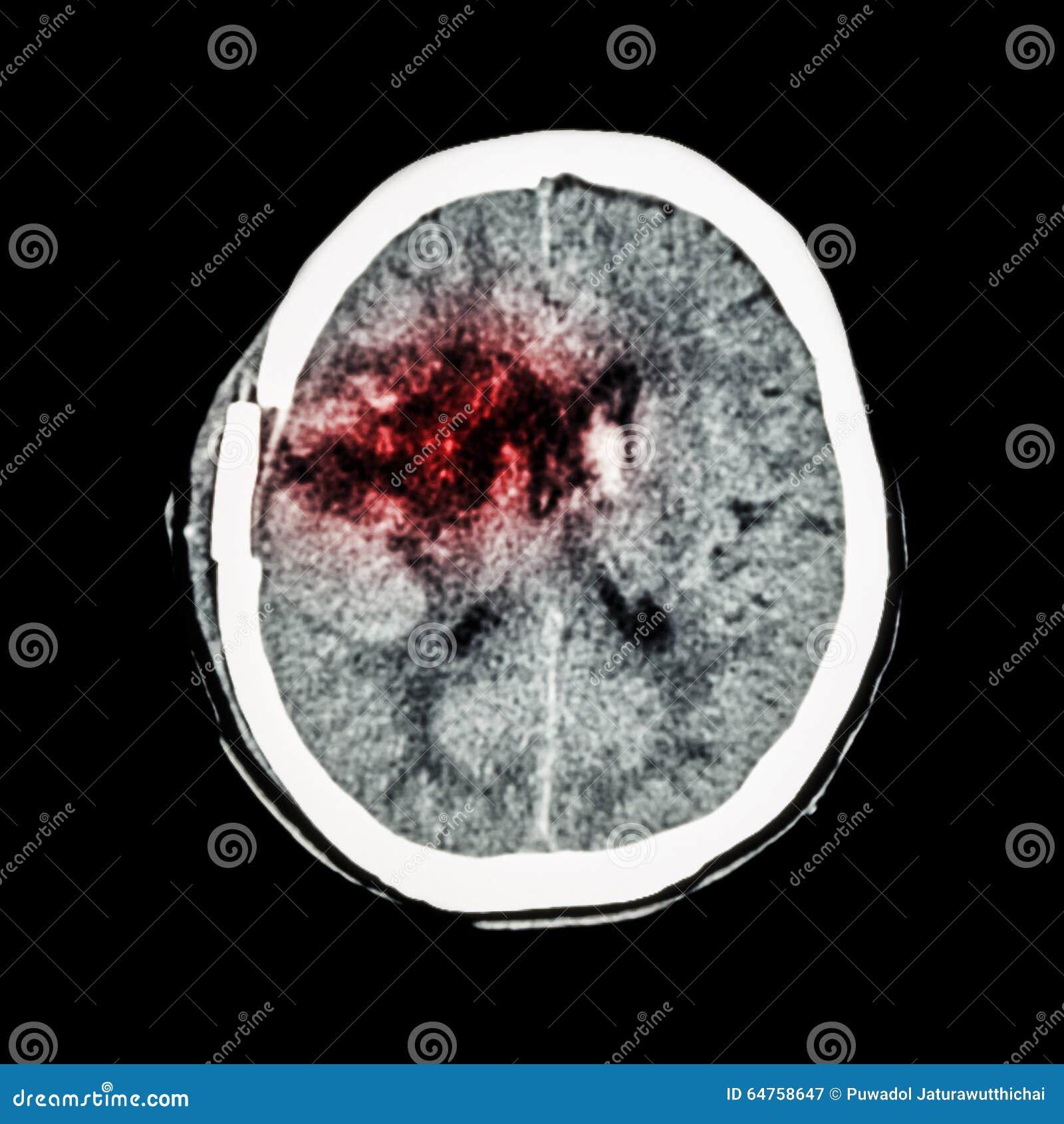 CT Scan Of Brain : Show Old Right Basal Ganglia Hemorrhage