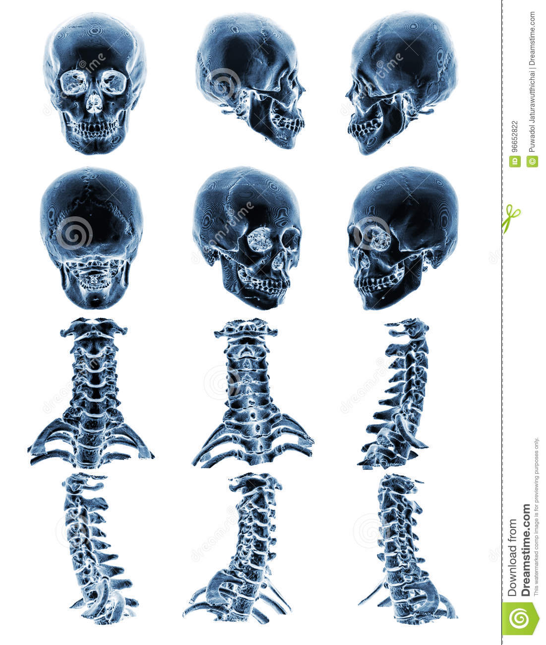 CT scan & x28; Computed tomography & x29; with 3D graphic show normal human skull and cervical spine