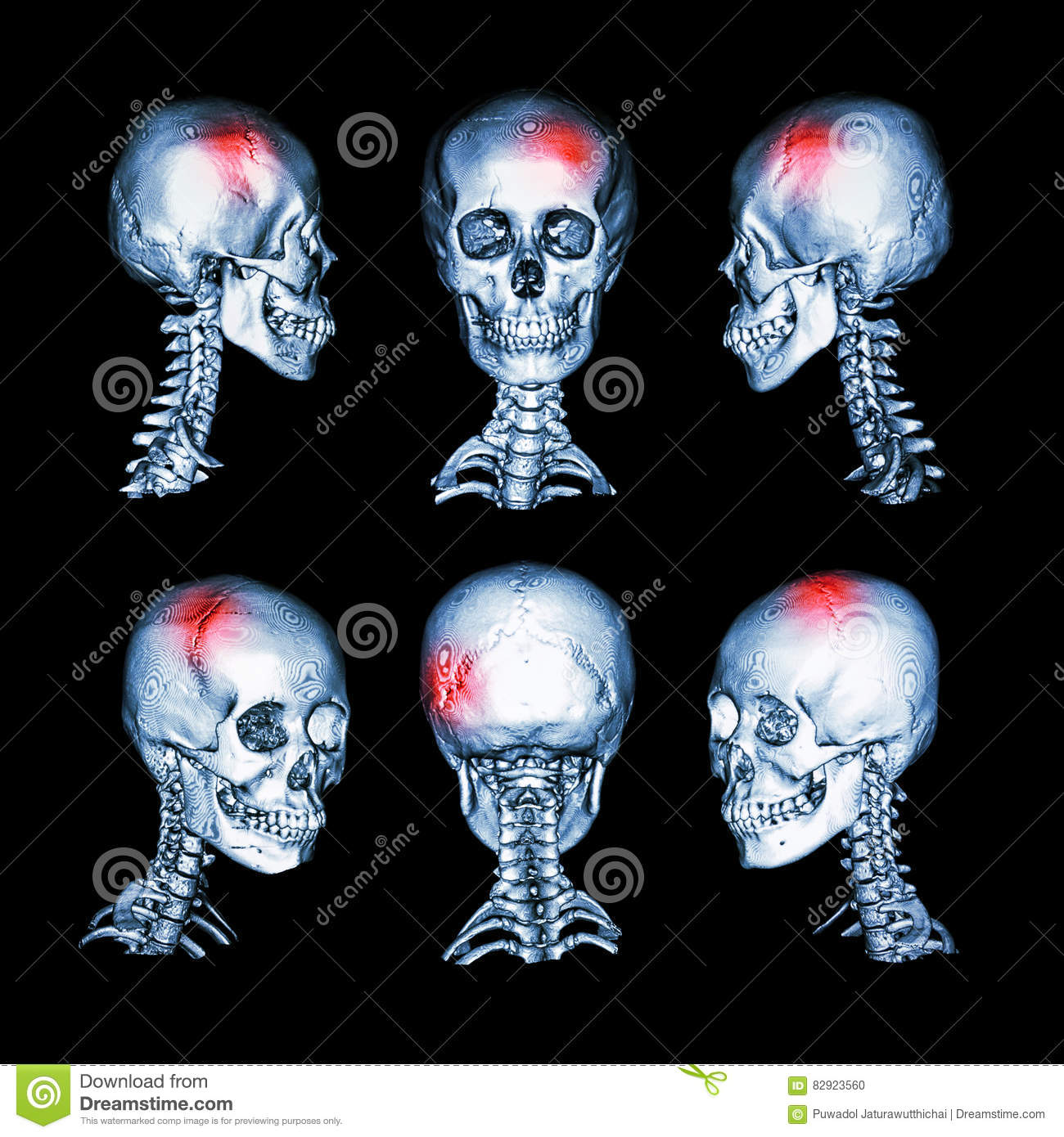 CT scan and 3D image of head and cervical spine. Use this image for stroke , skull fracture , neurological condition .