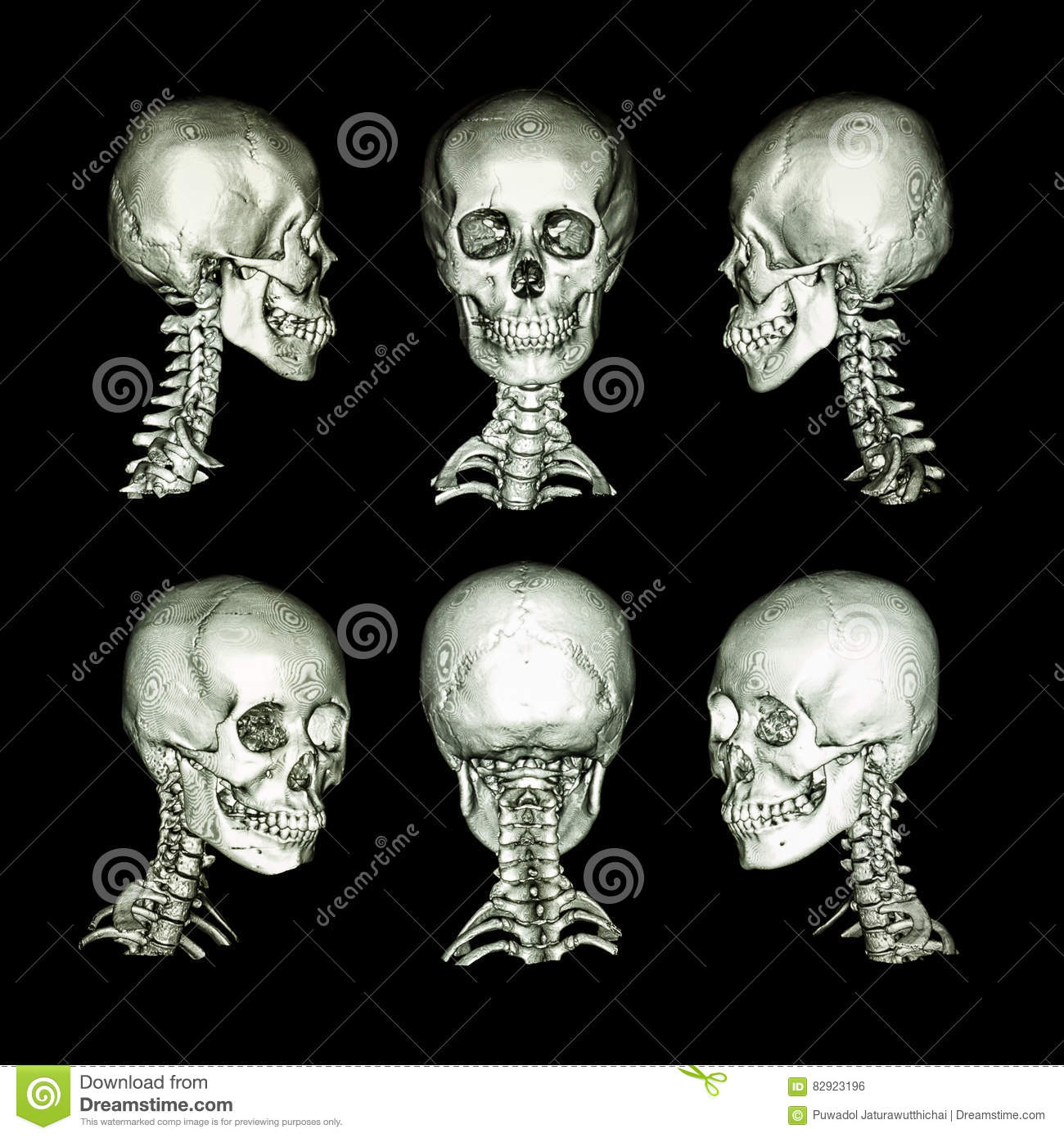 CT Scan And 3D Image  Normal Human Skull And Cervical Spine   All