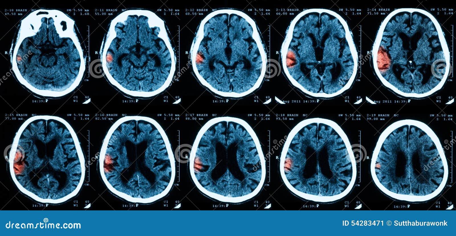 Ct-Scan des Gehirns stockbild. Bild von kopf, neurologie - 54283471
