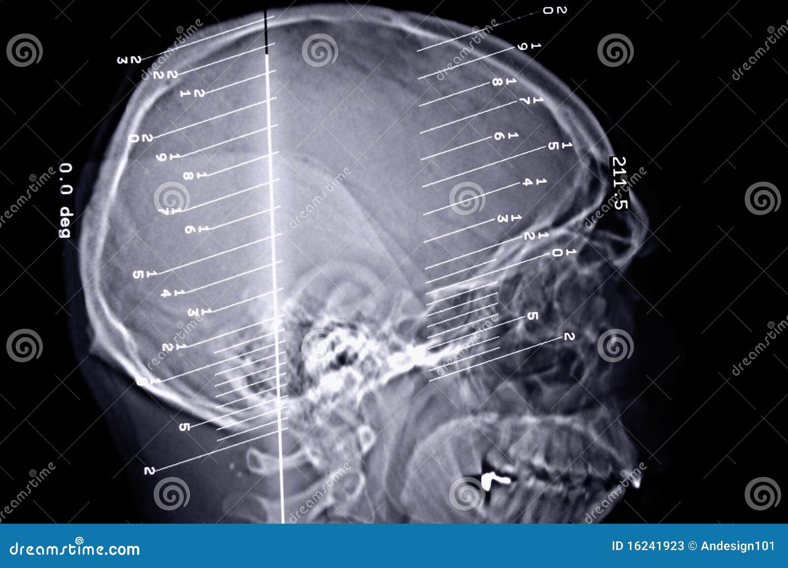Ct-Scan-Gehirn stockbild. Bild von strahl, knochen, anatomie - 16241923