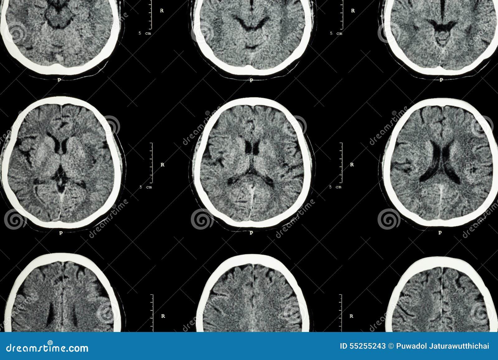 Ct-Scan Gehirn Der Gehirnshow Normalen (neurologischer Hintergrund ...