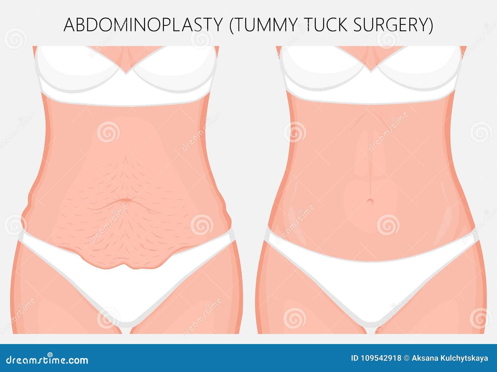 Cuerpo Humano Problem_Abdominoplasty Ilustración del Vector ...