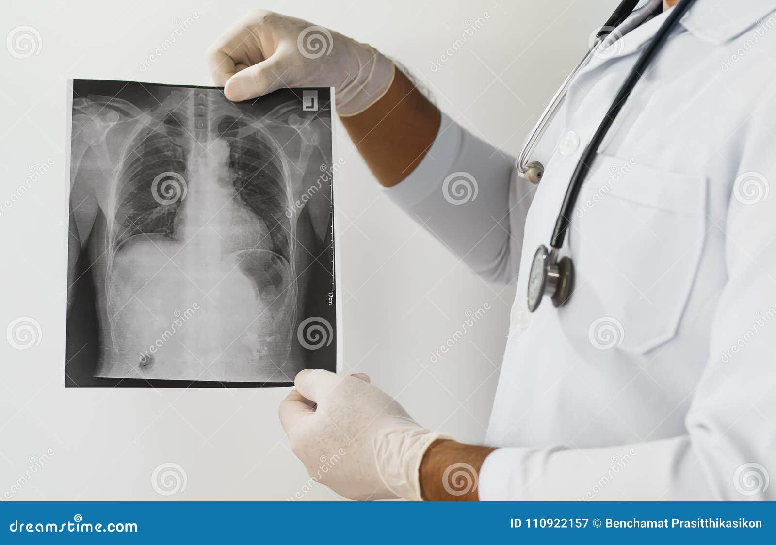 Cuide El Examen De Una Radiografía Del Pulmón, Doctor Que Mira La ...