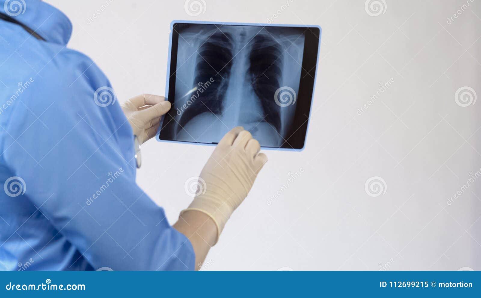 Cuide la comprobación de la radiografía paciente de los pulmones, tratamiento de la enfermedad bronquial, pulmonía