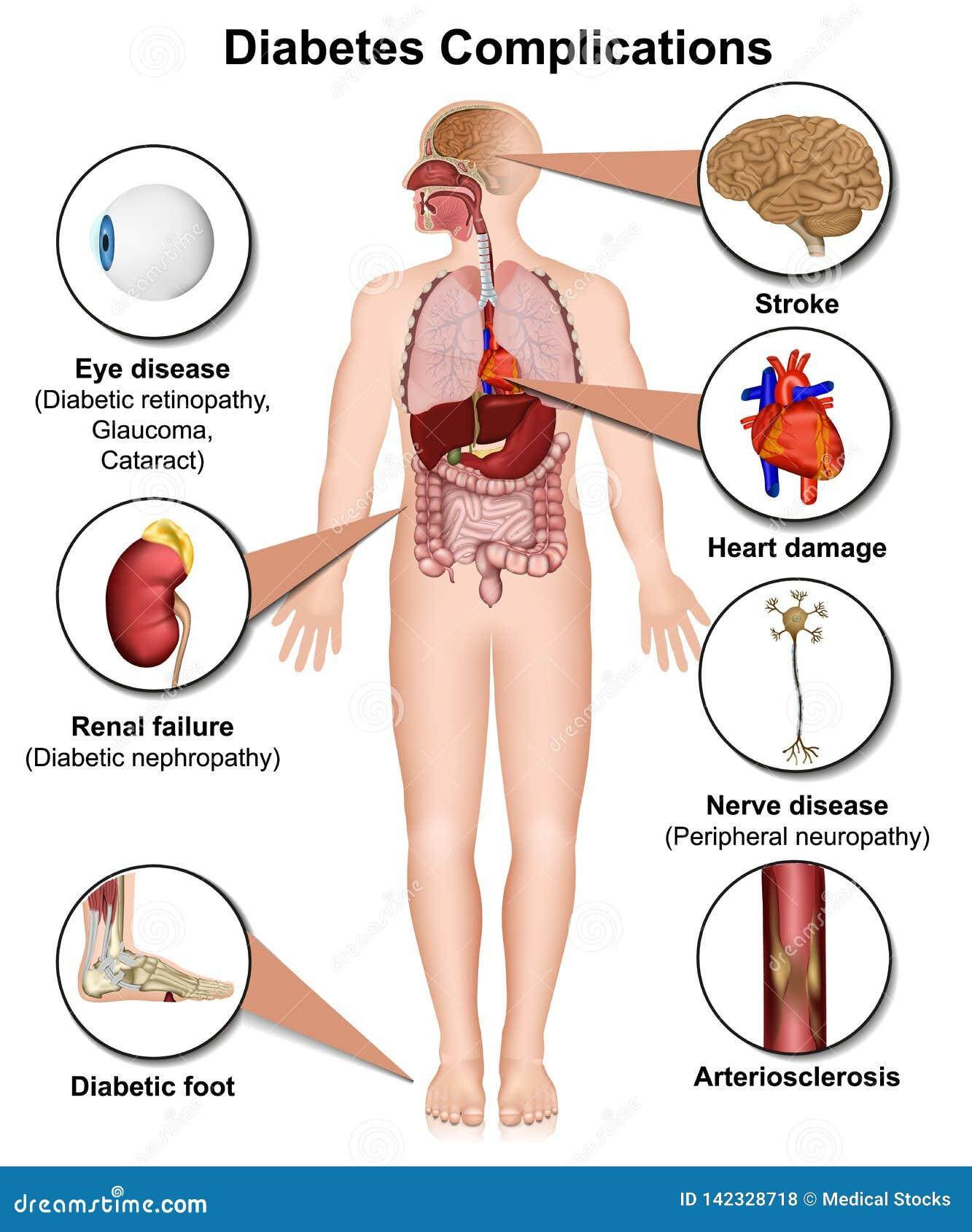 Cukrzyc komplikacje i choroby medyczna 3d ilustracja na białym tle