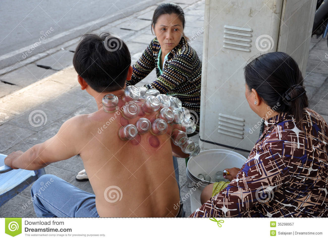 Cup Therapy In Vietnam Editorial Photography Image 35298957