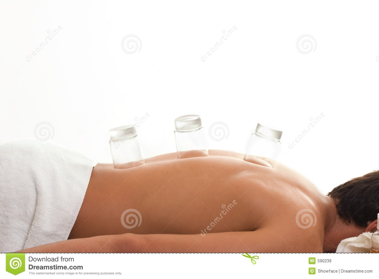 Cupping Therapy Royalty Free Stock Images - Image: 590239