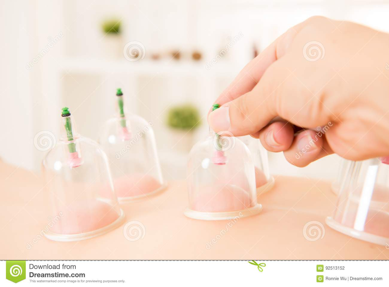 Cupping therapy spa woman removes