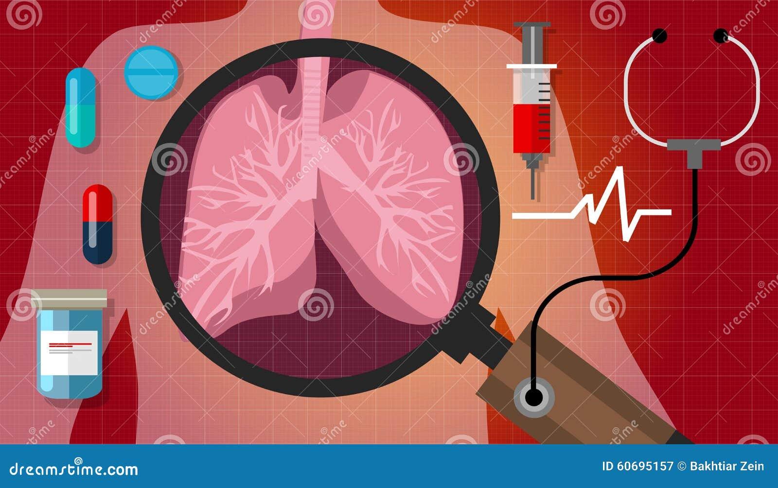 Curación Respiratoria De La Asistencia Médica De La Anatomía De La ...