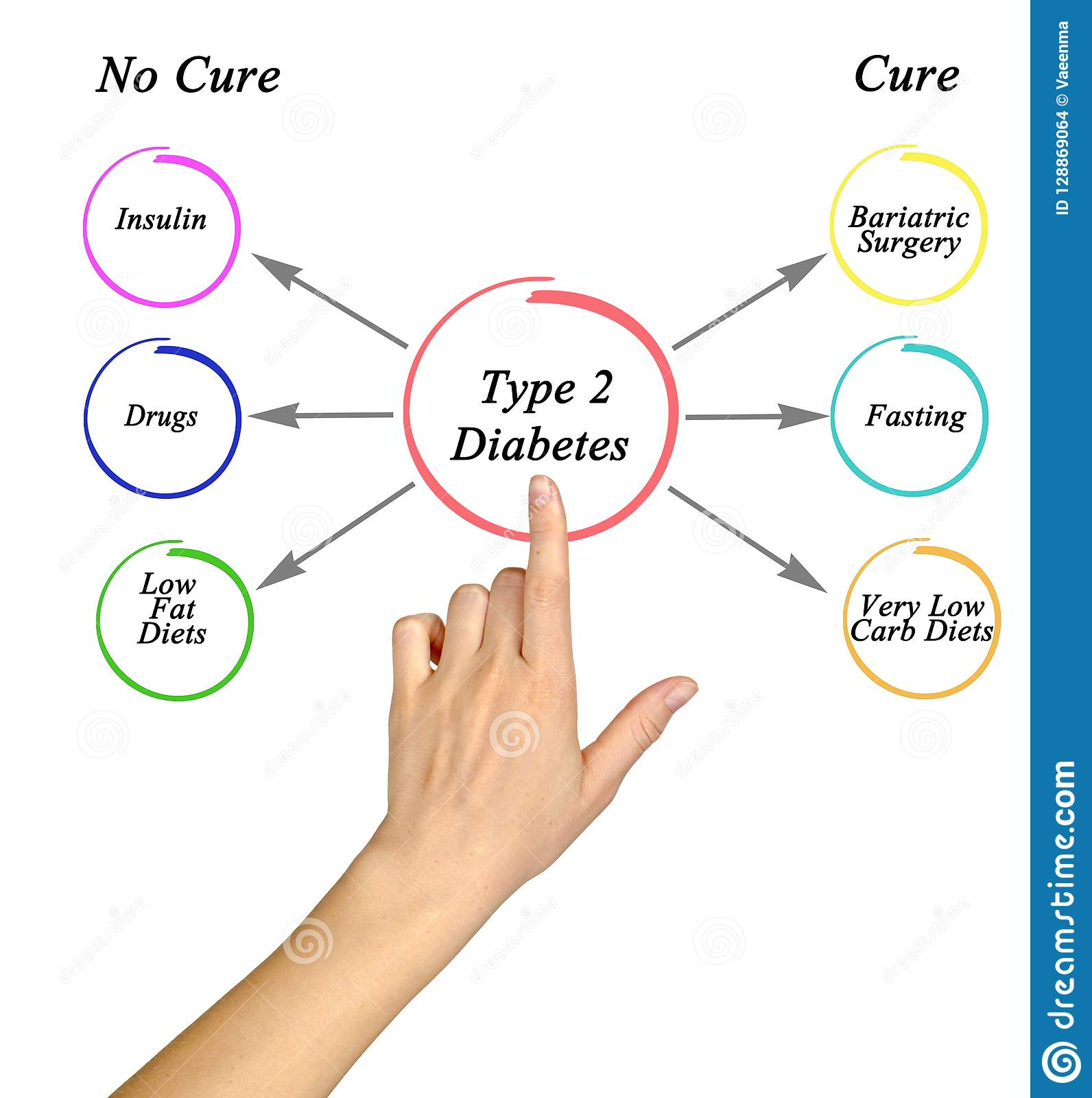 can you cure type 2 diabetes