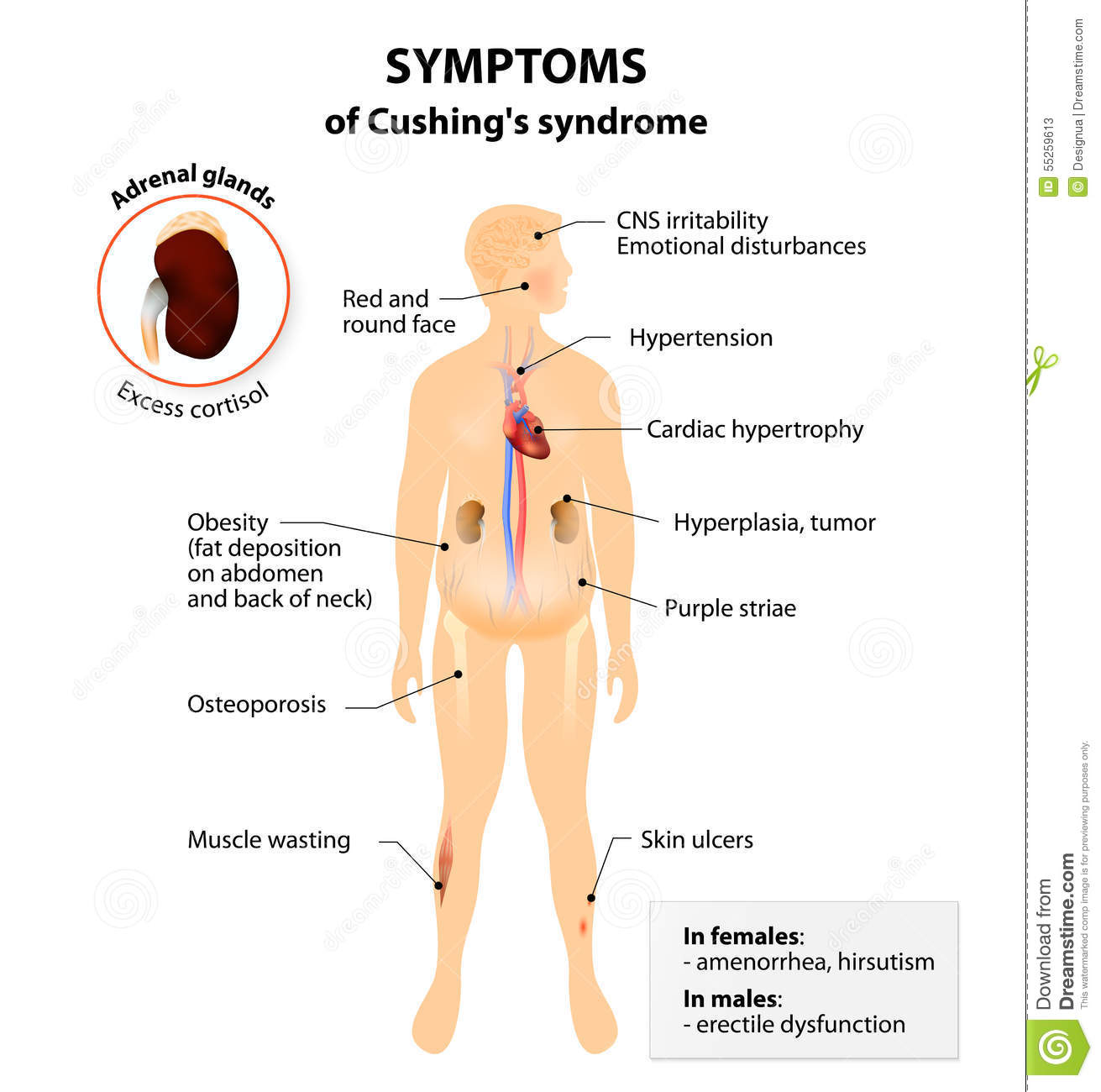 steroid dependent nephrotic syndrome rituximab
