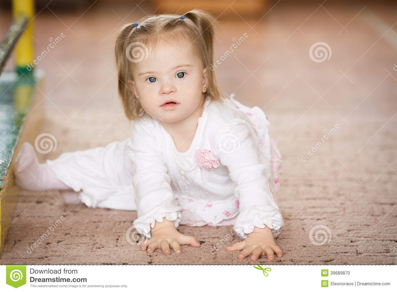cute little girl with down syndrome stock photo   image