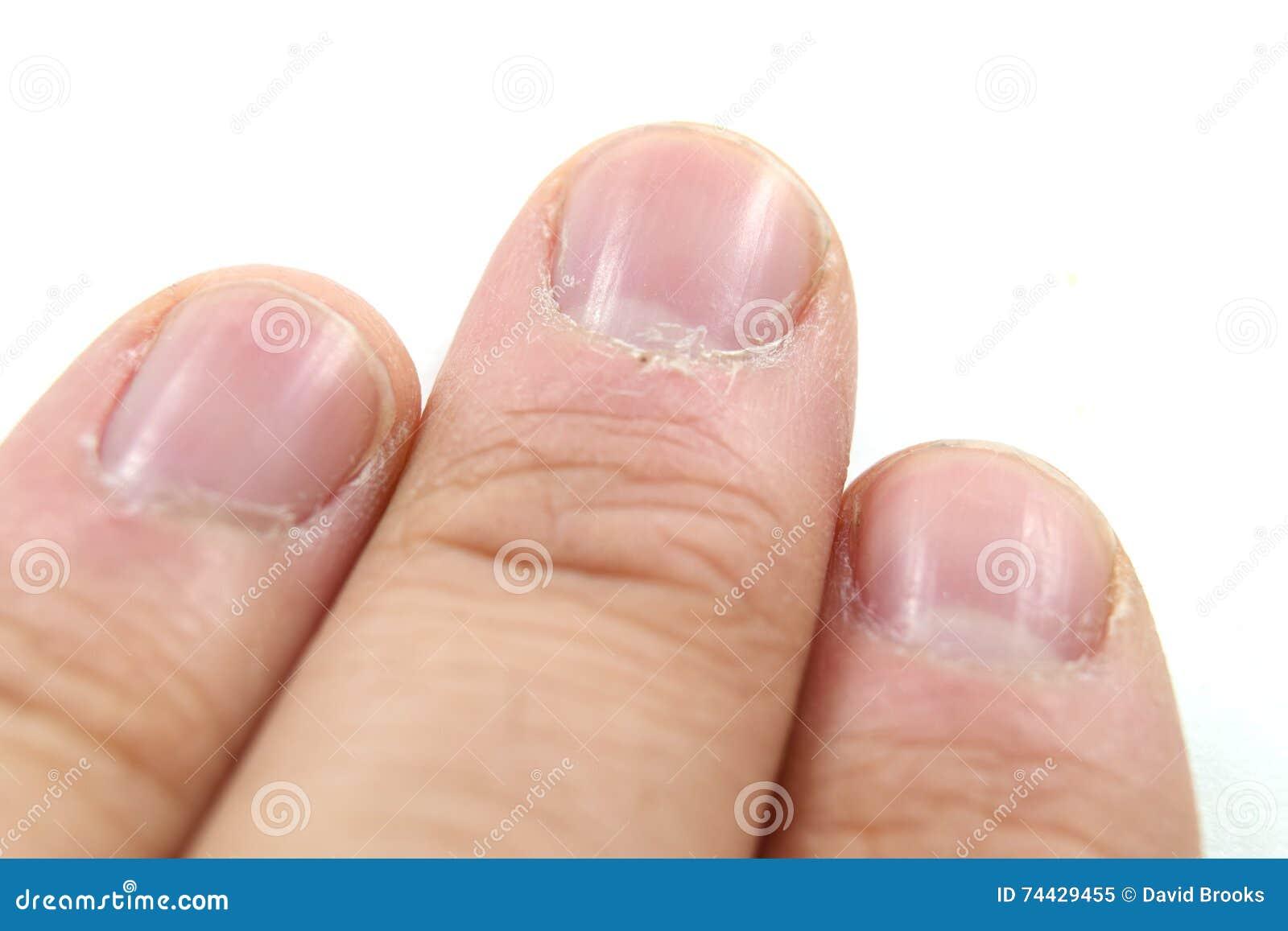 Cuticles macro stock image. Image of nails, isolated - 74429455