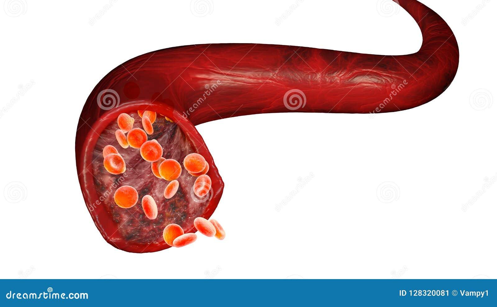 Czerwone komórki krwi i przepływ krwi przez żyły, małe bańczaste komórki proteina która daje czerwonemu kolorowi które zawierają