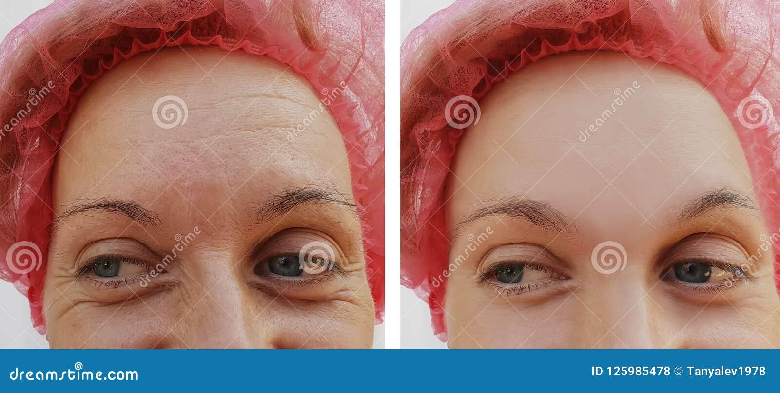 Czoło kobieta marszczy rezultaty przed i po kosmetycznym procedury usunięciem