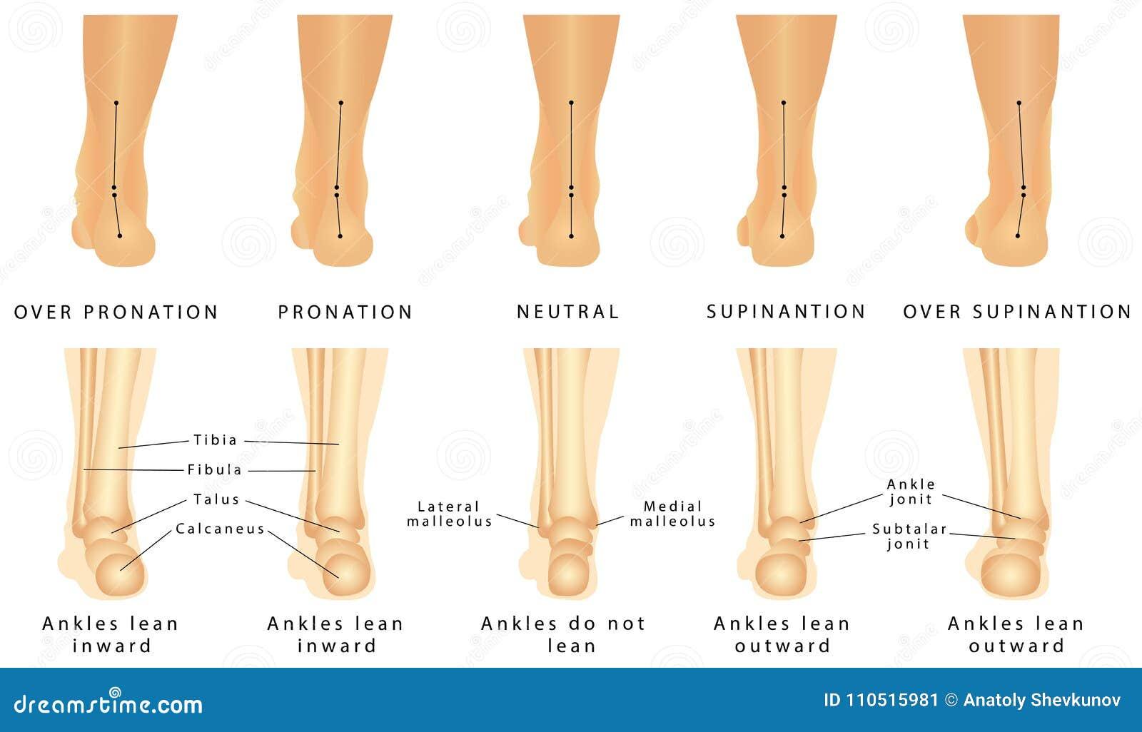 Déformation de pied