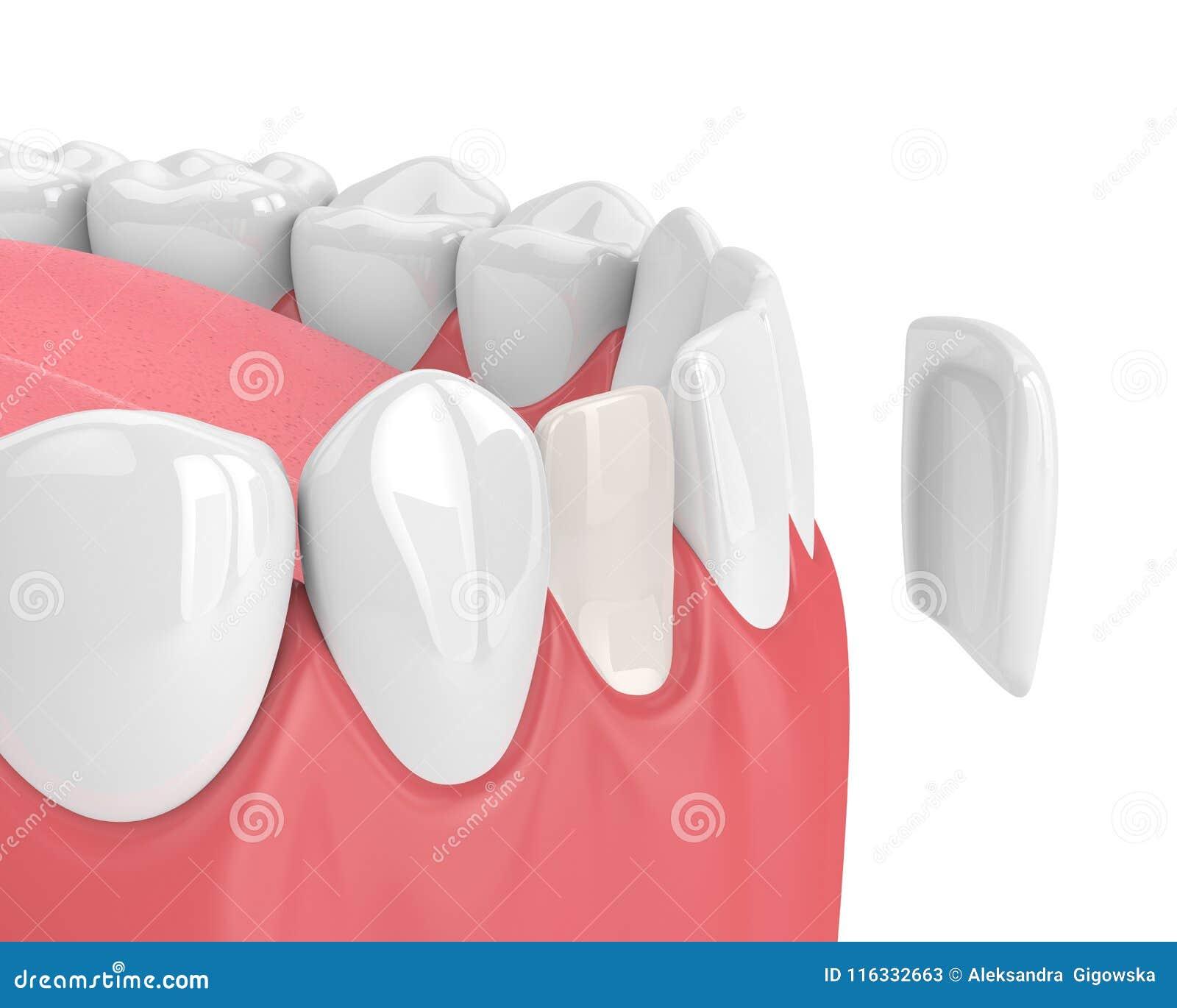 3d回报有表面饰板的牙
