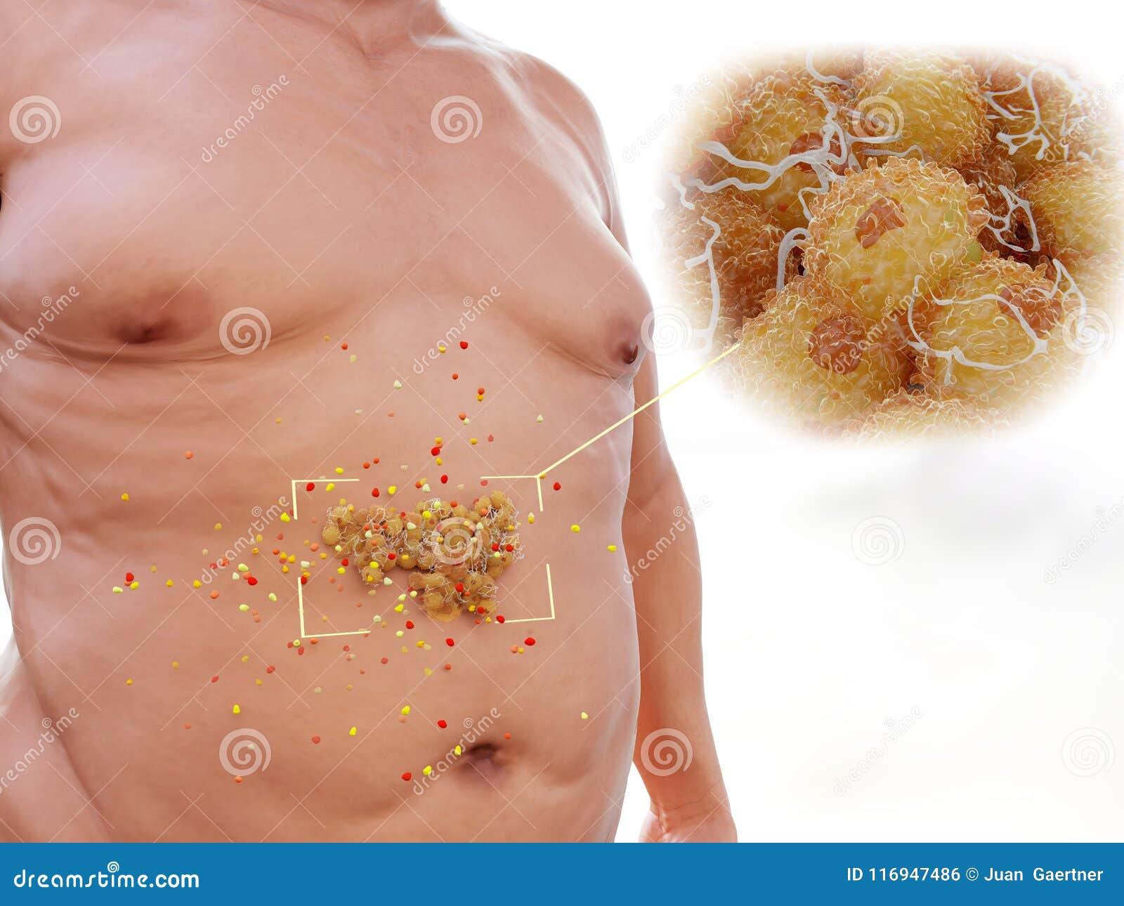 Fat Accumulation 4