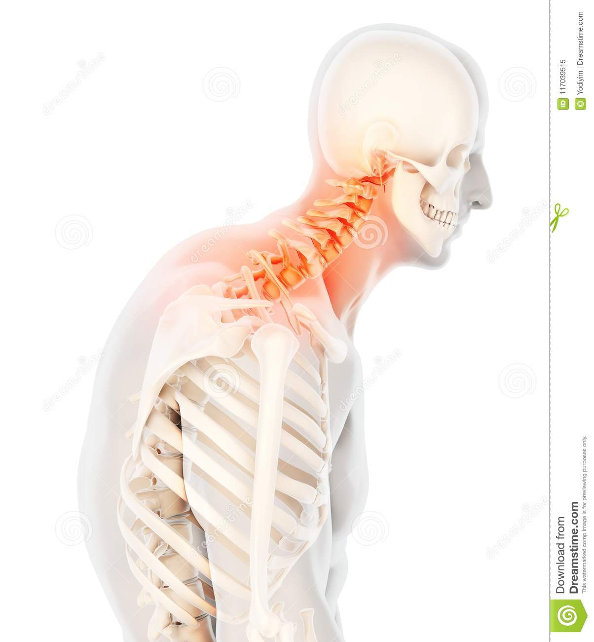 Neck Painful Cervical Spine Skeleton X Ray 3d Illustration Stock