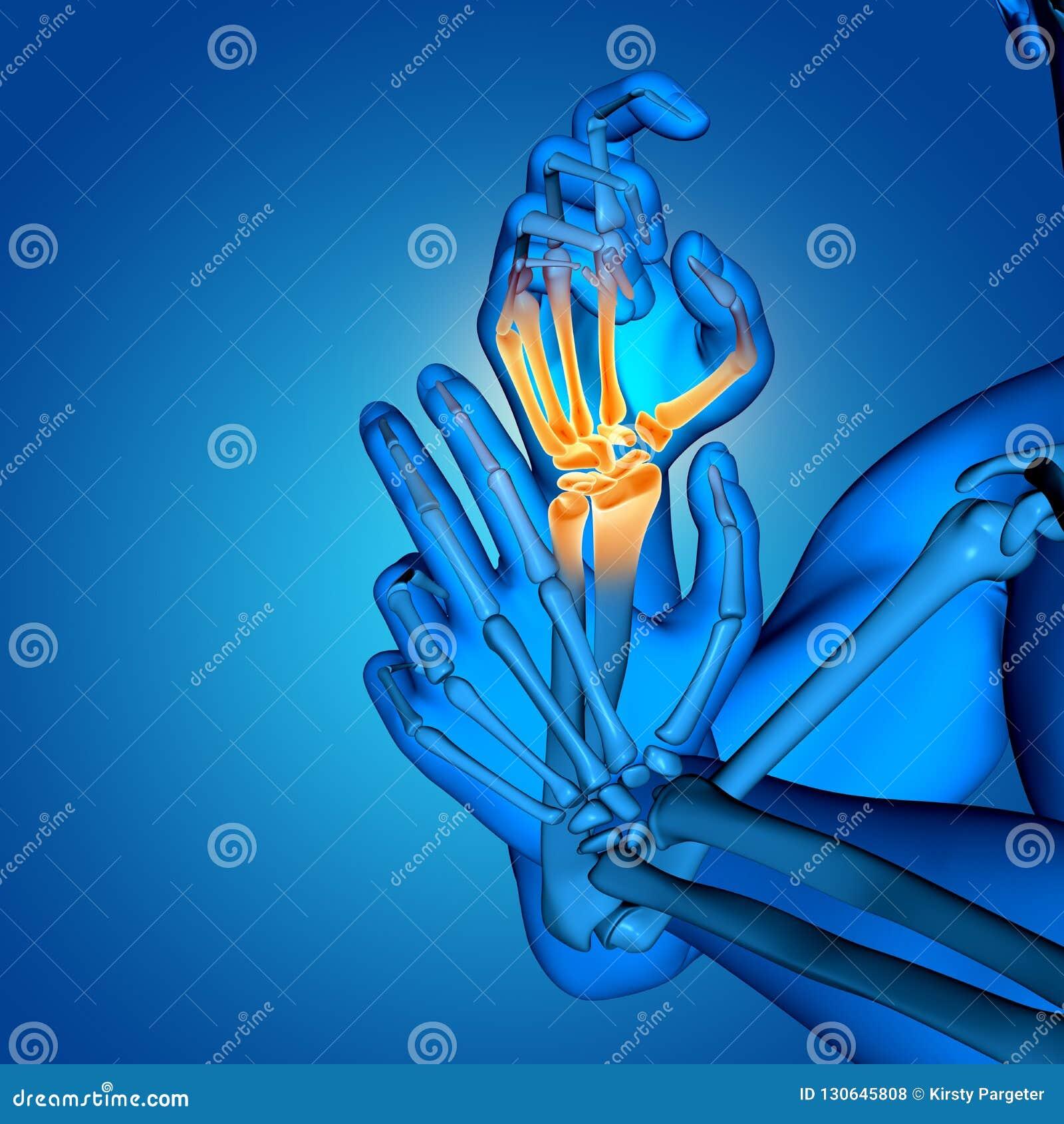 3D męska medyczna postać z zakończeniem w górę ręk kości