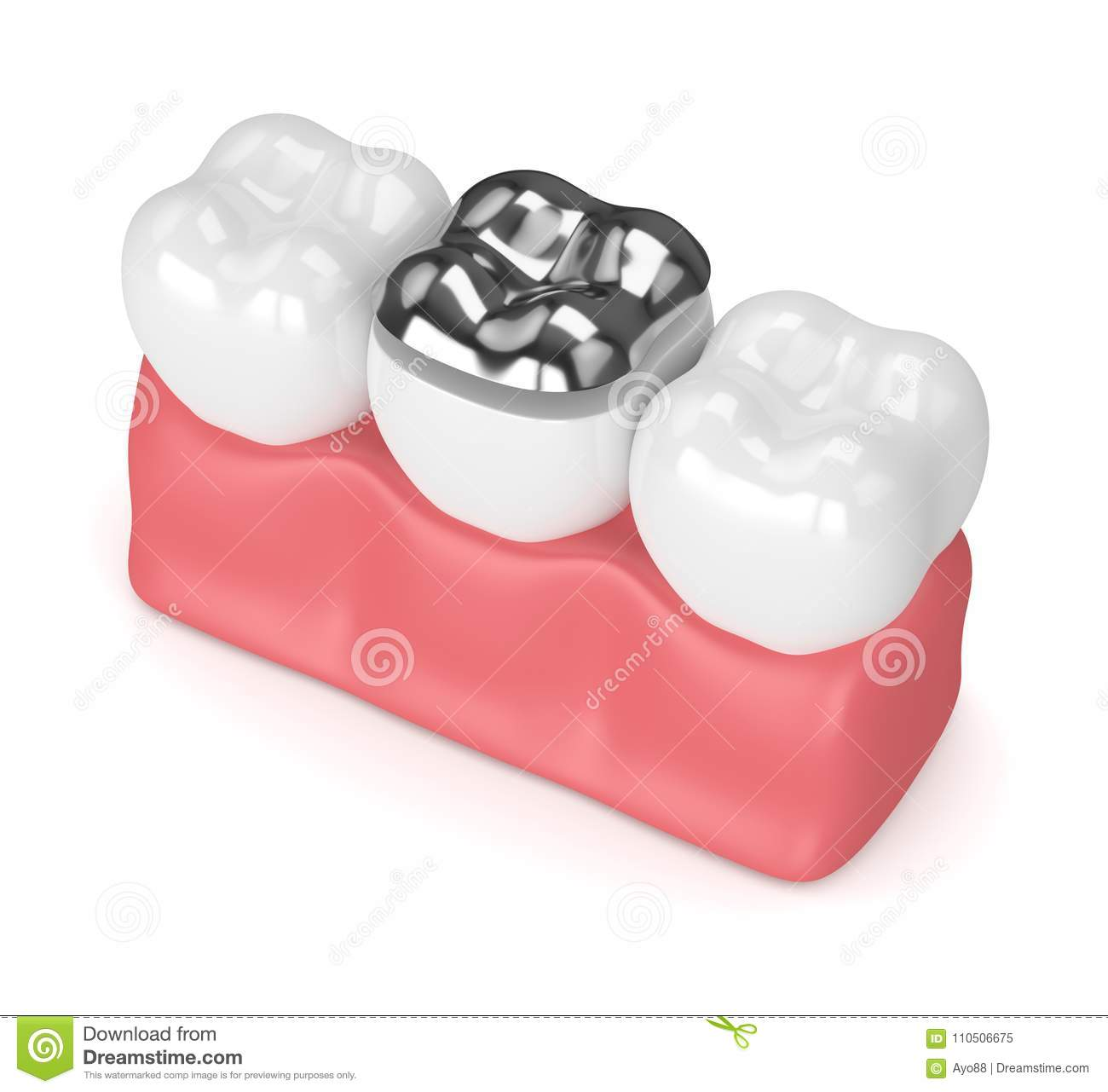 3d Render Of Teeth With Dental Onlay Amalgam Filling Stock ...
