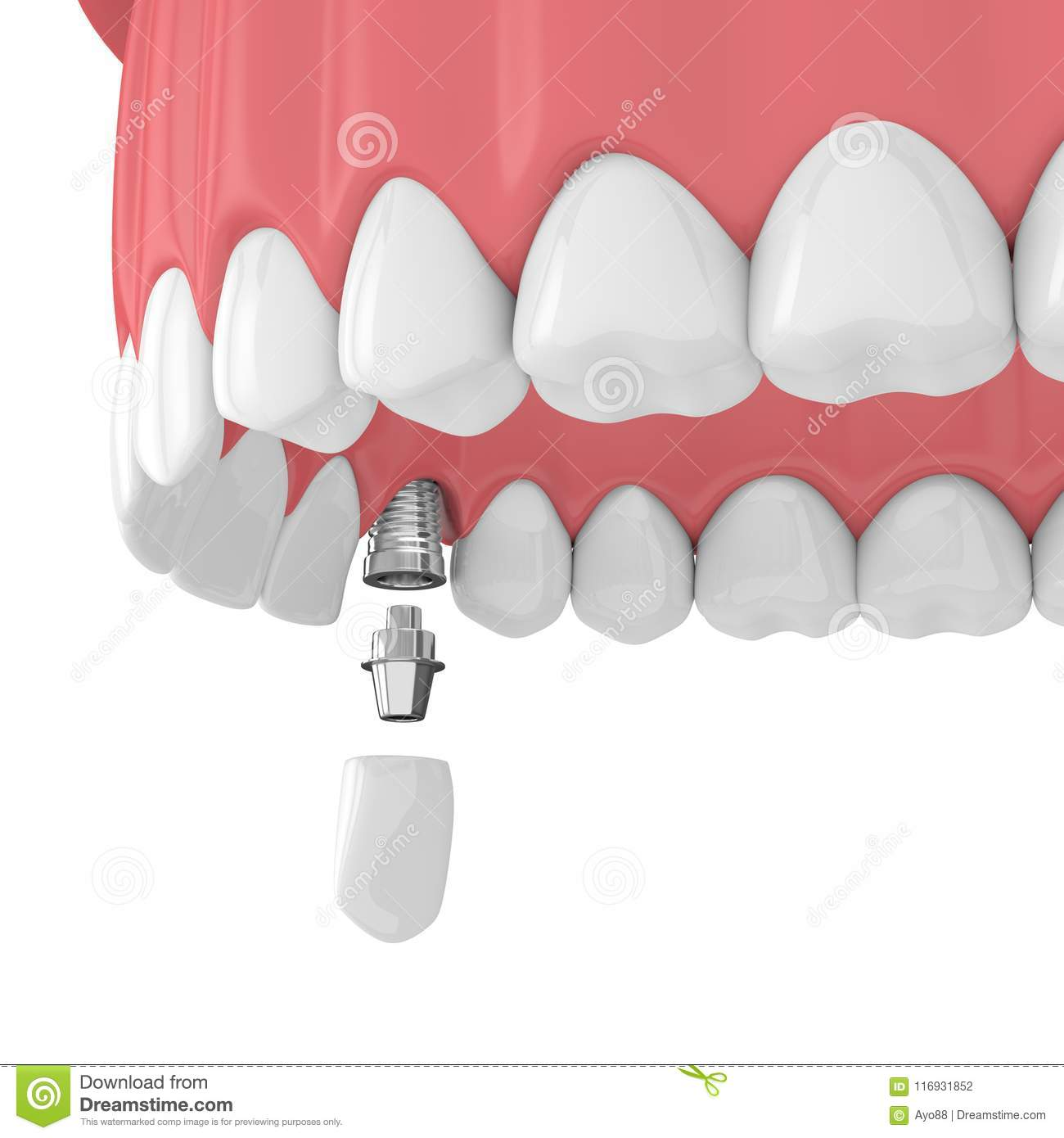 3d Render Of Upper Jaw With Teeth And Dental Canine Implant Stock ...