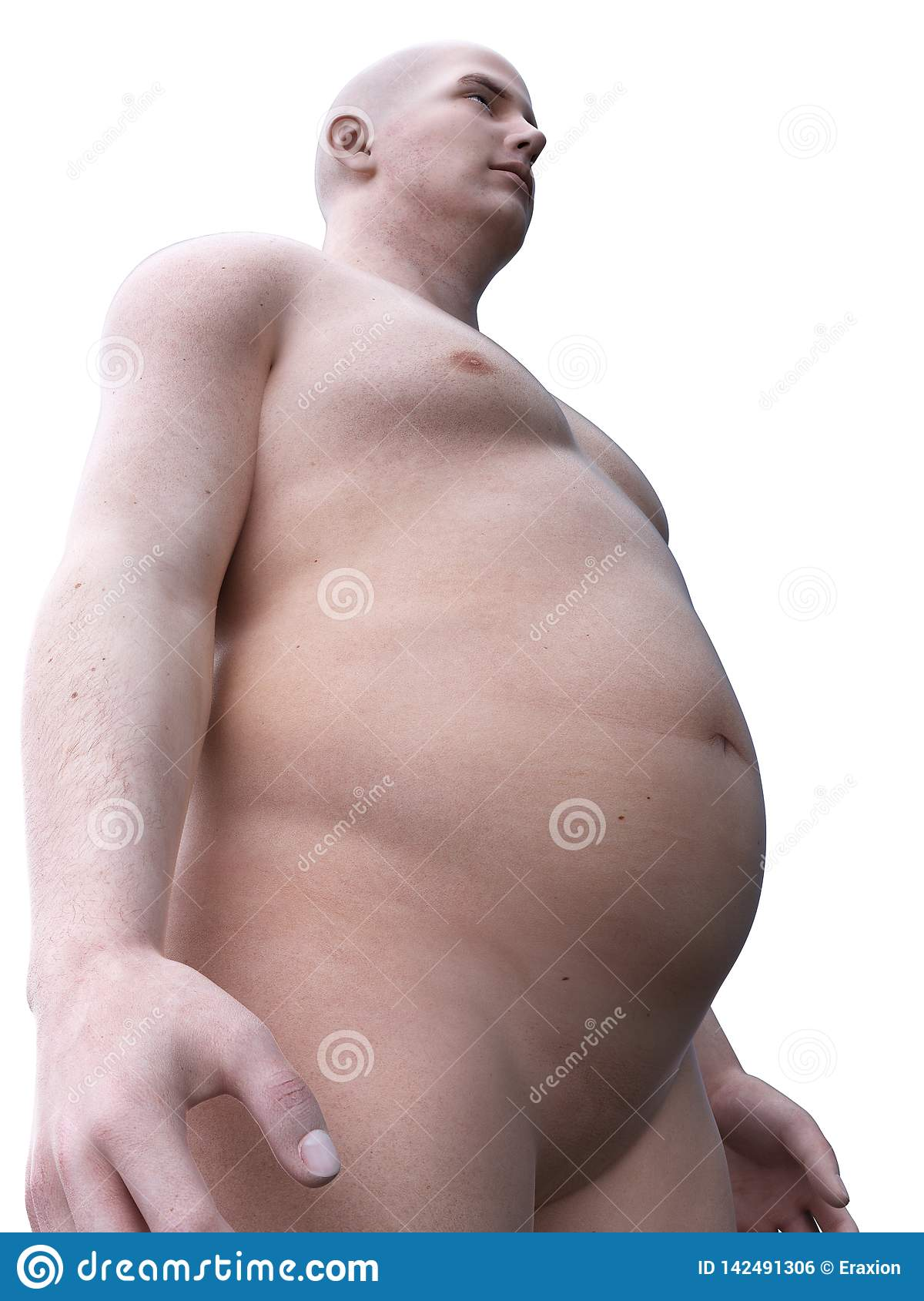 An Obese Male Stock Illustration Illustration Of Anatomical 142491306