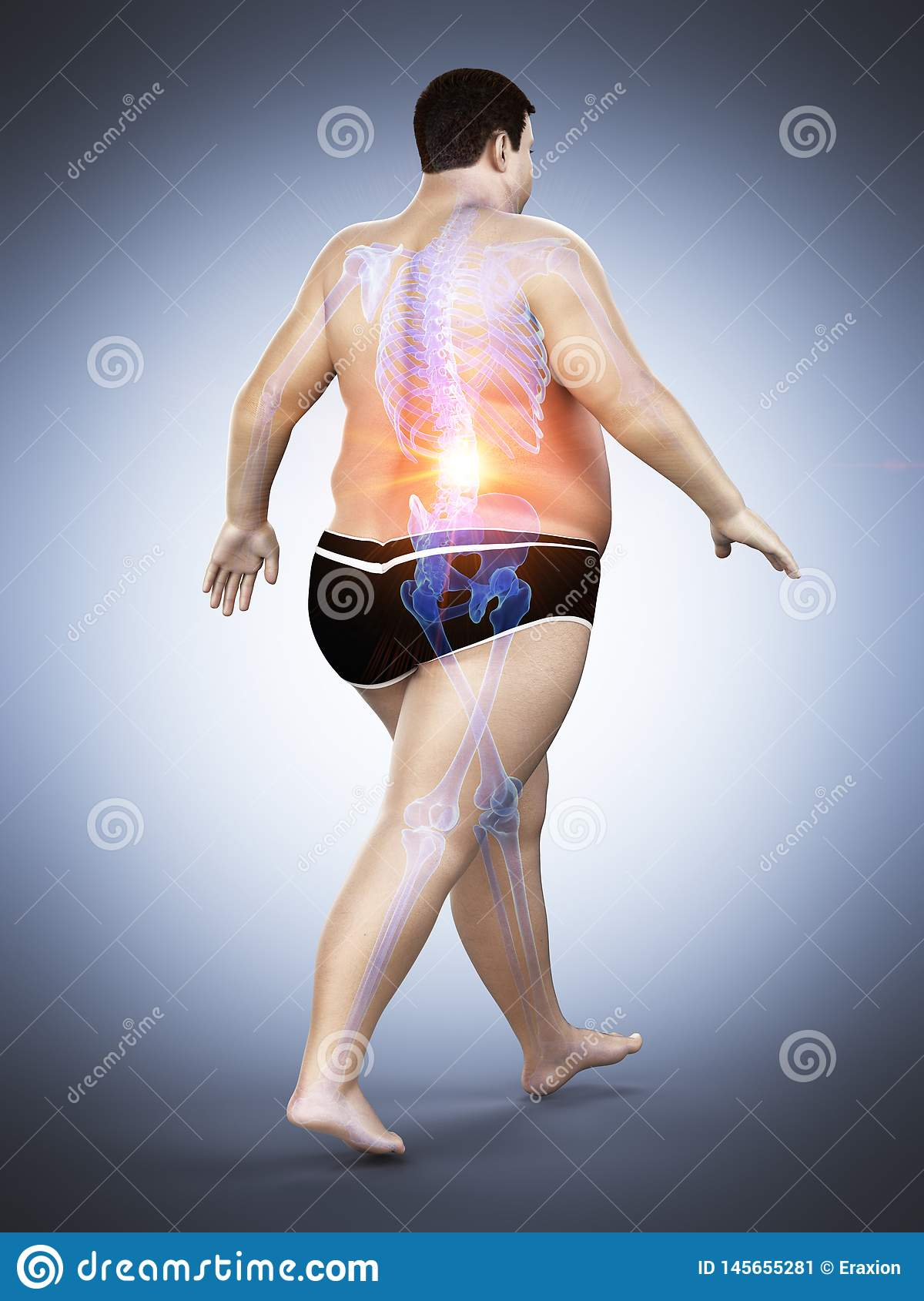 An obese runners painful back