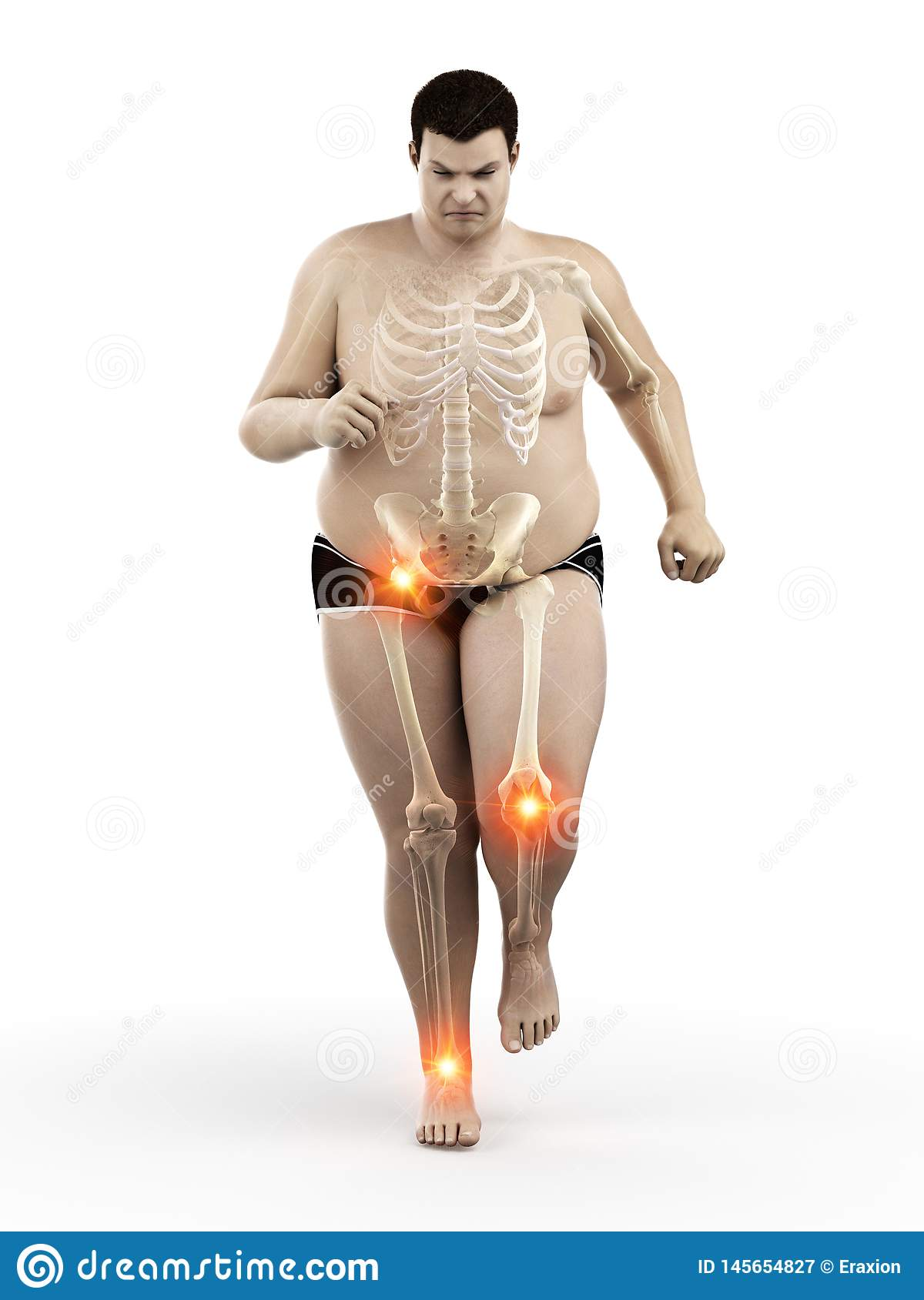 An obese runners painful joints