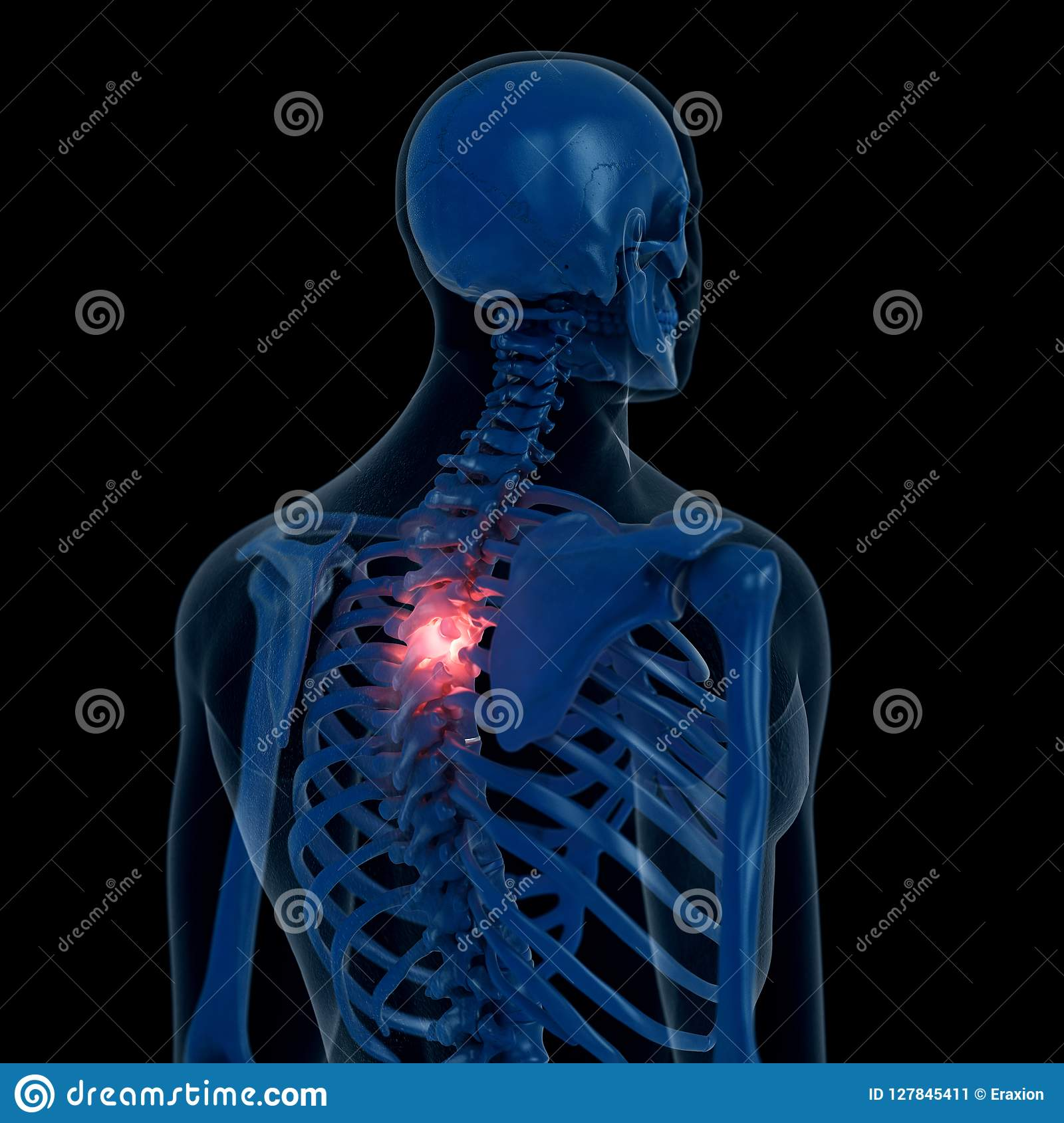 A Painful Thoracic Spine Stock Illustration Illustration Of Dark