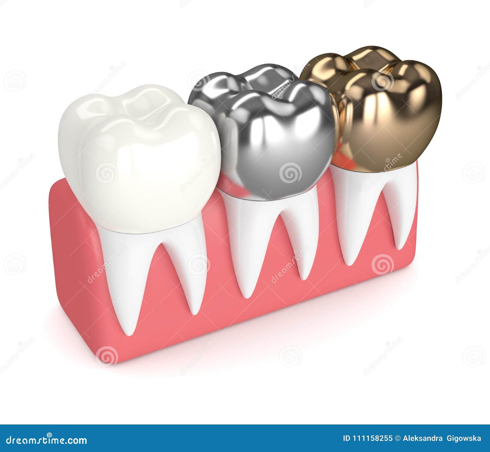 3d Rinden De Dientes Con Diversos Tipos De Corona Dental Stock de ...