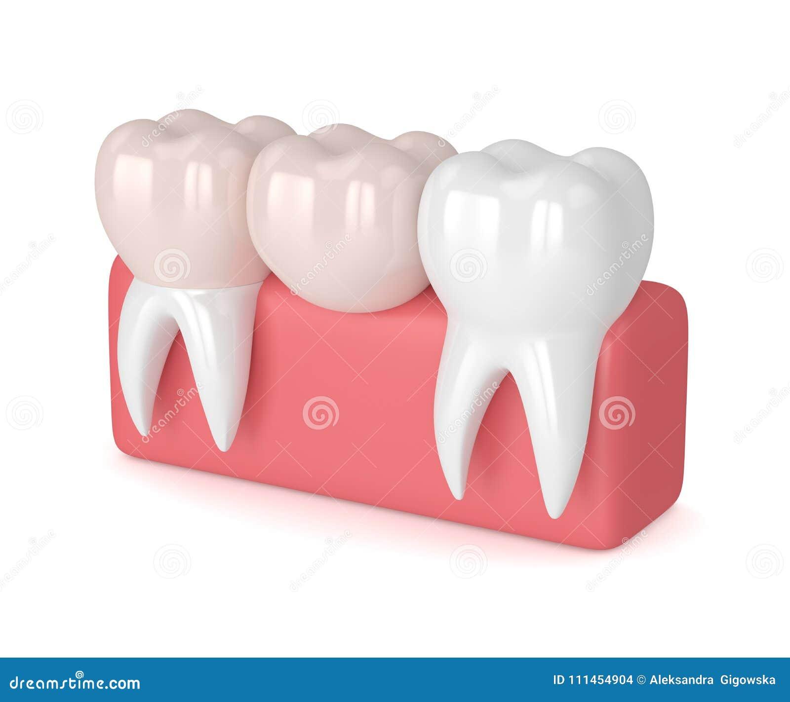 3d Rinden De Dientes Con El Puente Voladizo Dental Stock de ...