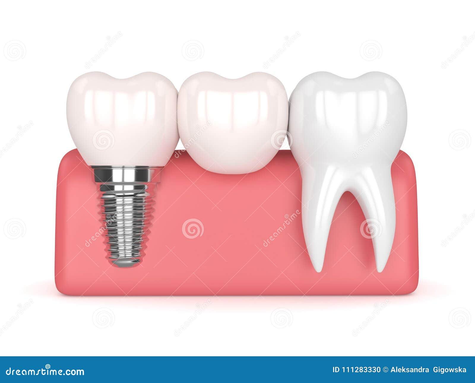3d Rinden Del Implante Con El Puente Voladizo Dental Stock de ...