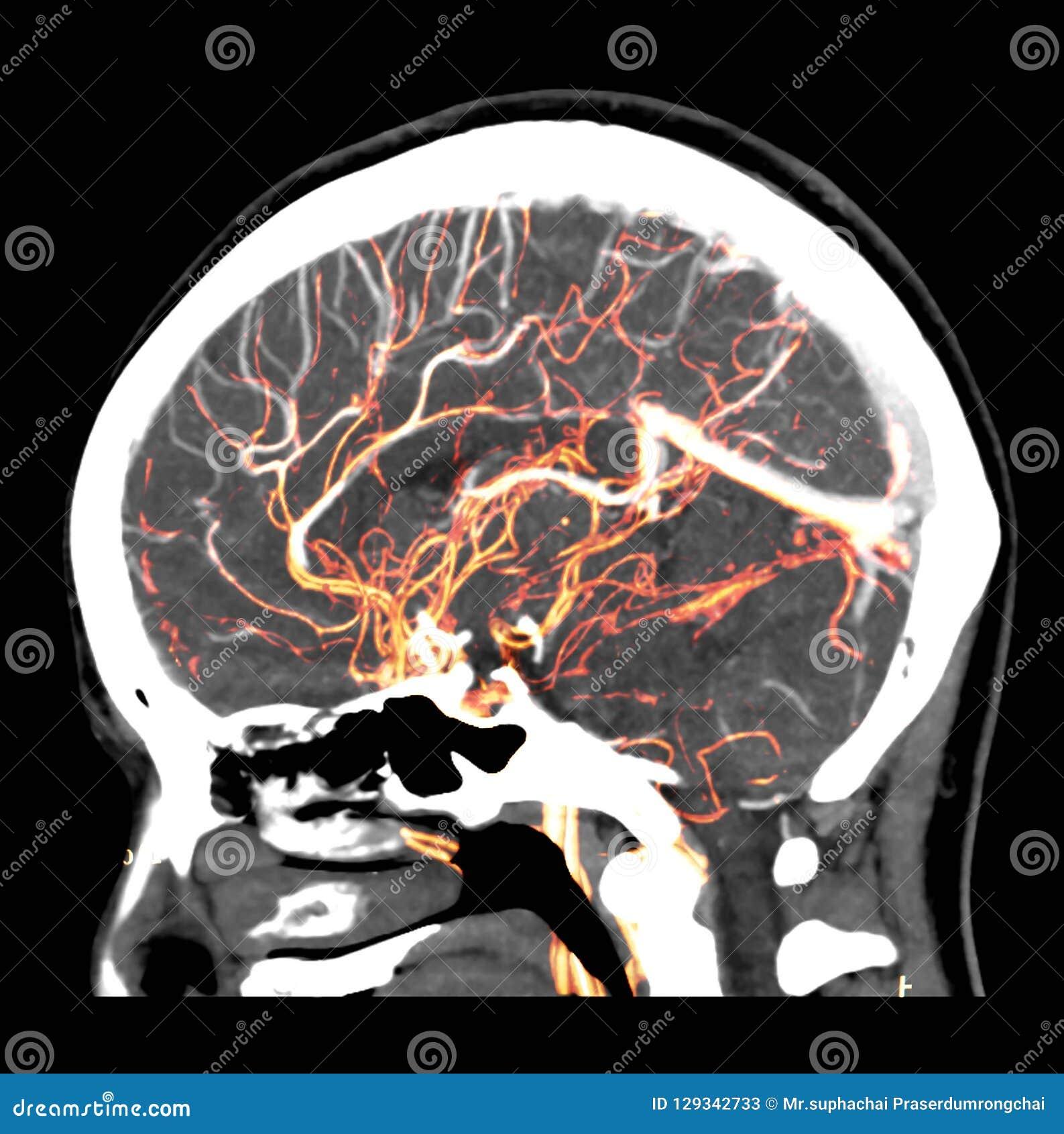3D Teruggevend beeld van de menselijke hersenen die normale slagaders in het hoofd tonen door CT SCANNER