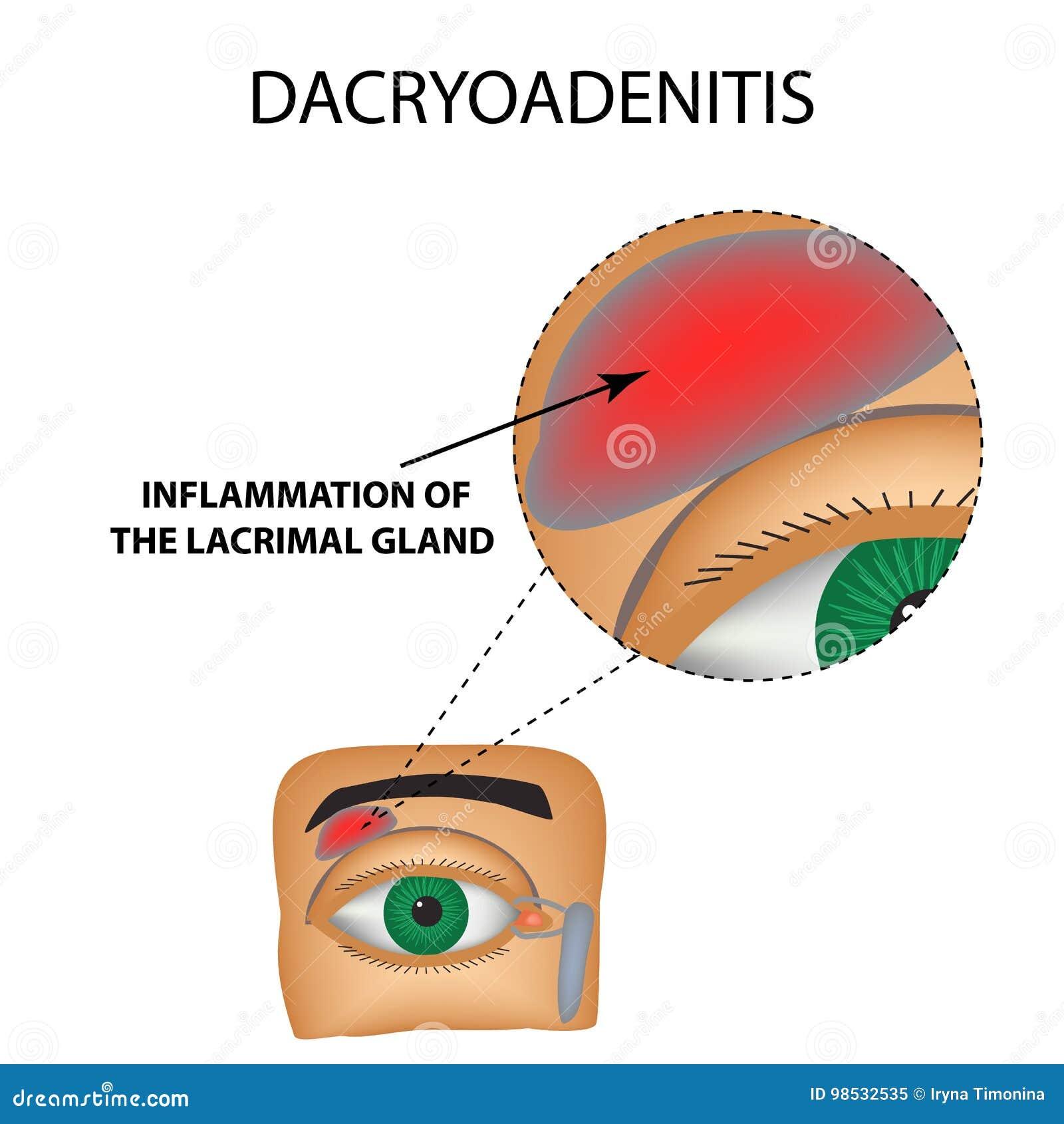 Dacryoadenitis Воспаление слезовой железы Структура глаза Инфографика