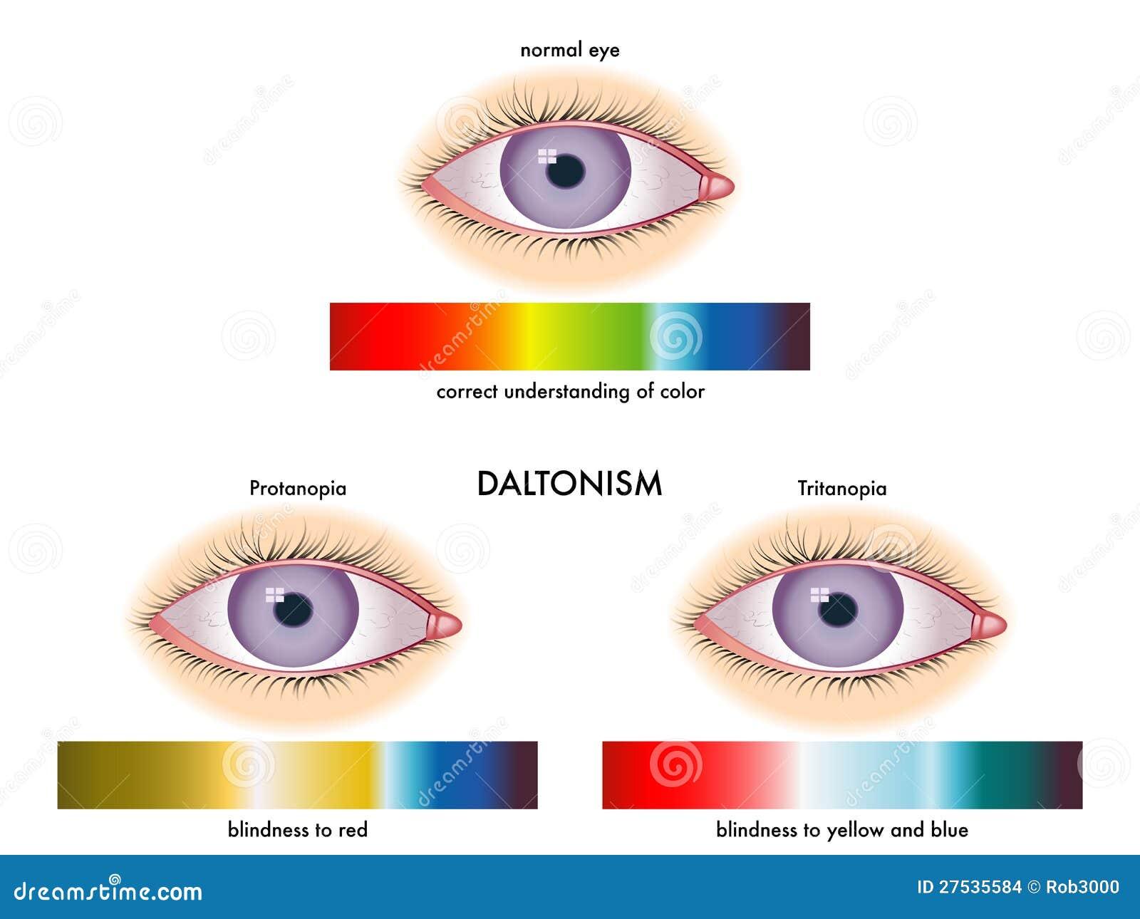 Цветовая схема для проверки зрения у