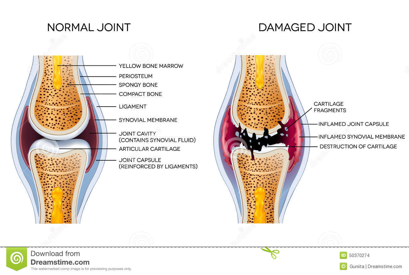 Damaged Joint And Healthy Joint Stock Vector
