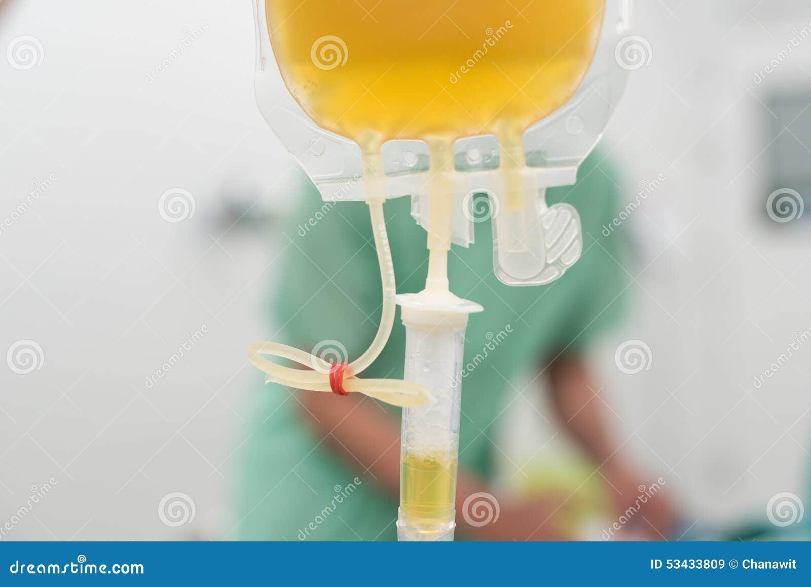 Dando componentes congelados frescos do sangue do plasma durante a cirurgia