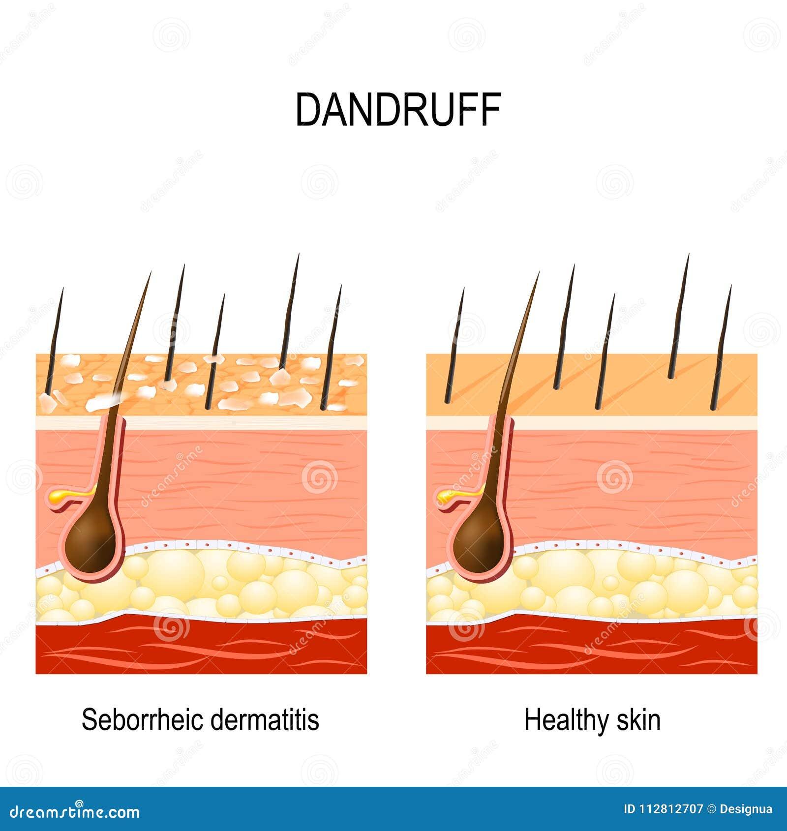 Dandruff dermatite seborrheic
