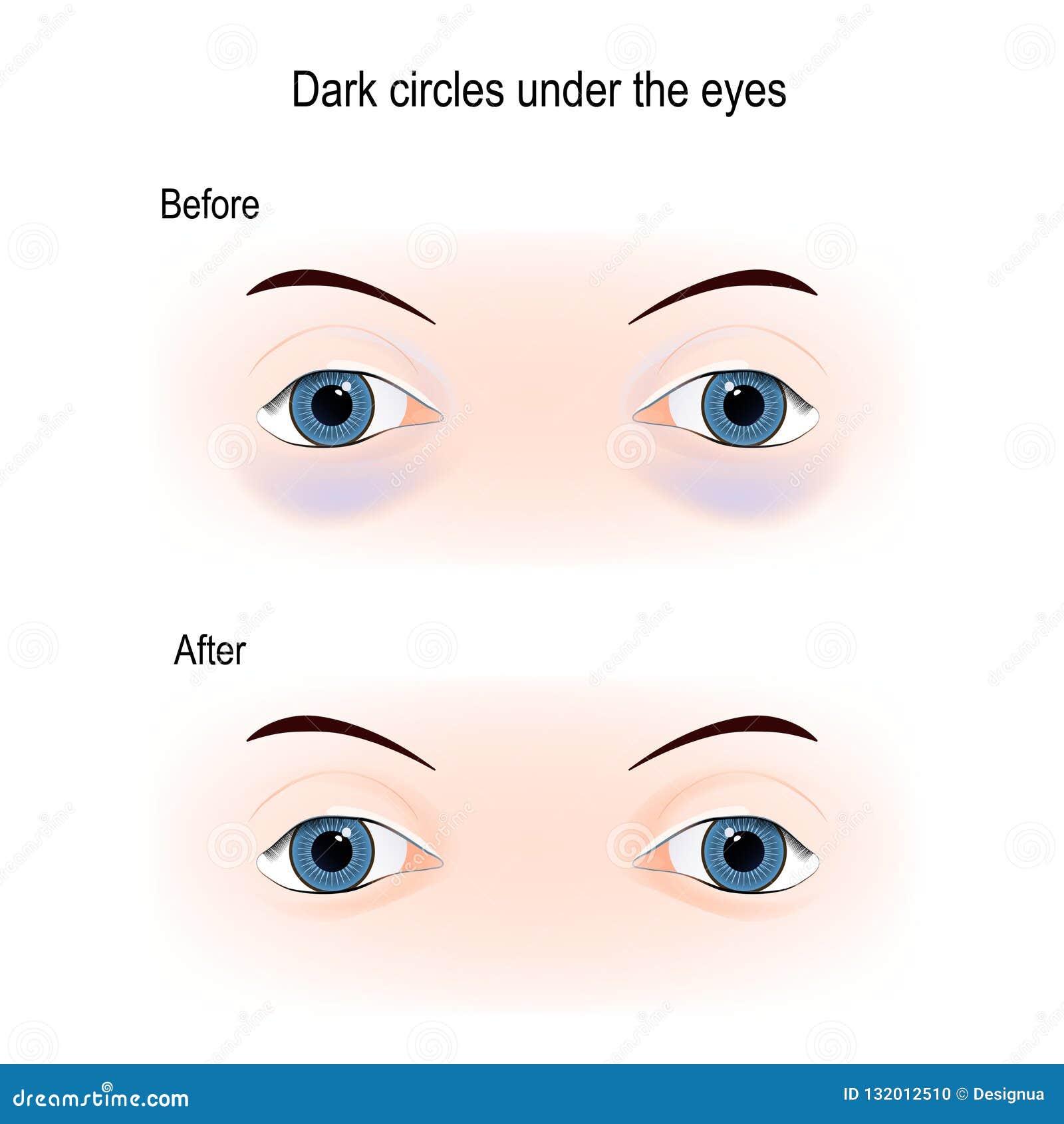 Dark Circles Under The Eyes Stock Vector - Illustration of