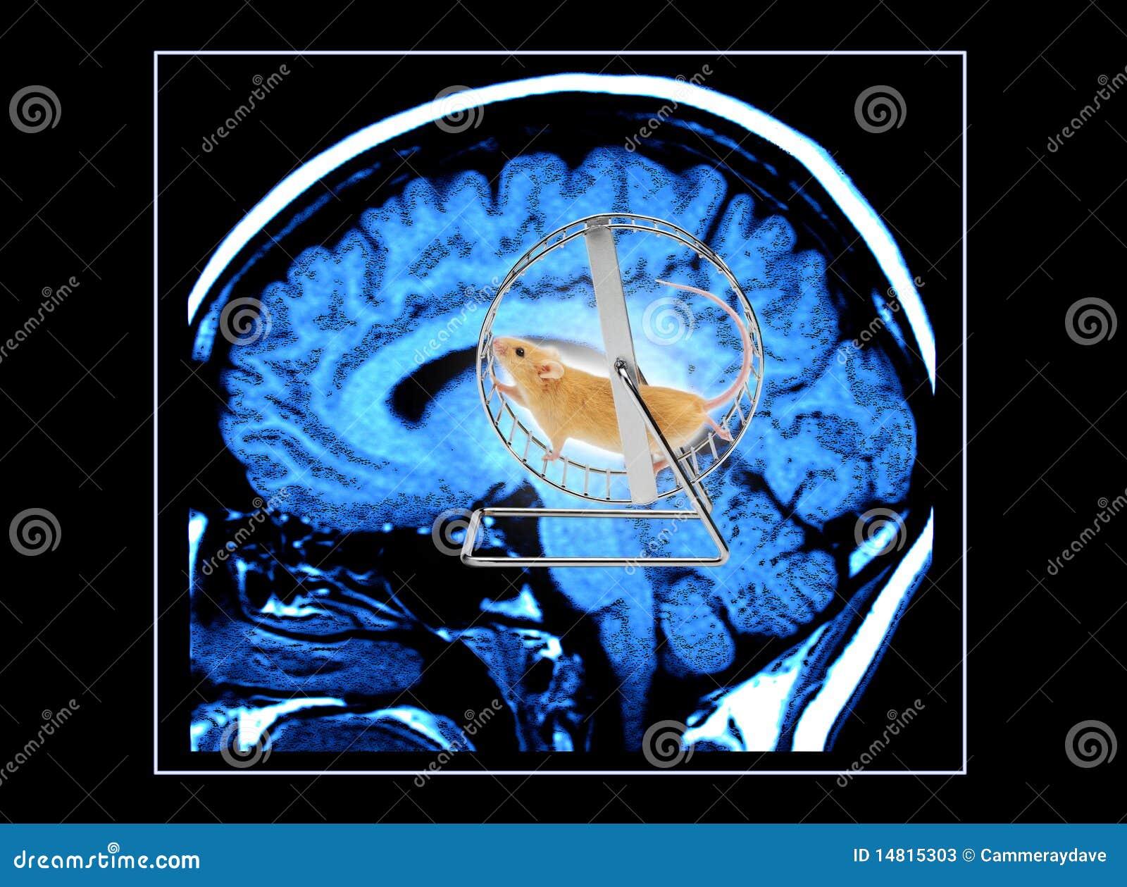 Das Arbeitsgehirn
