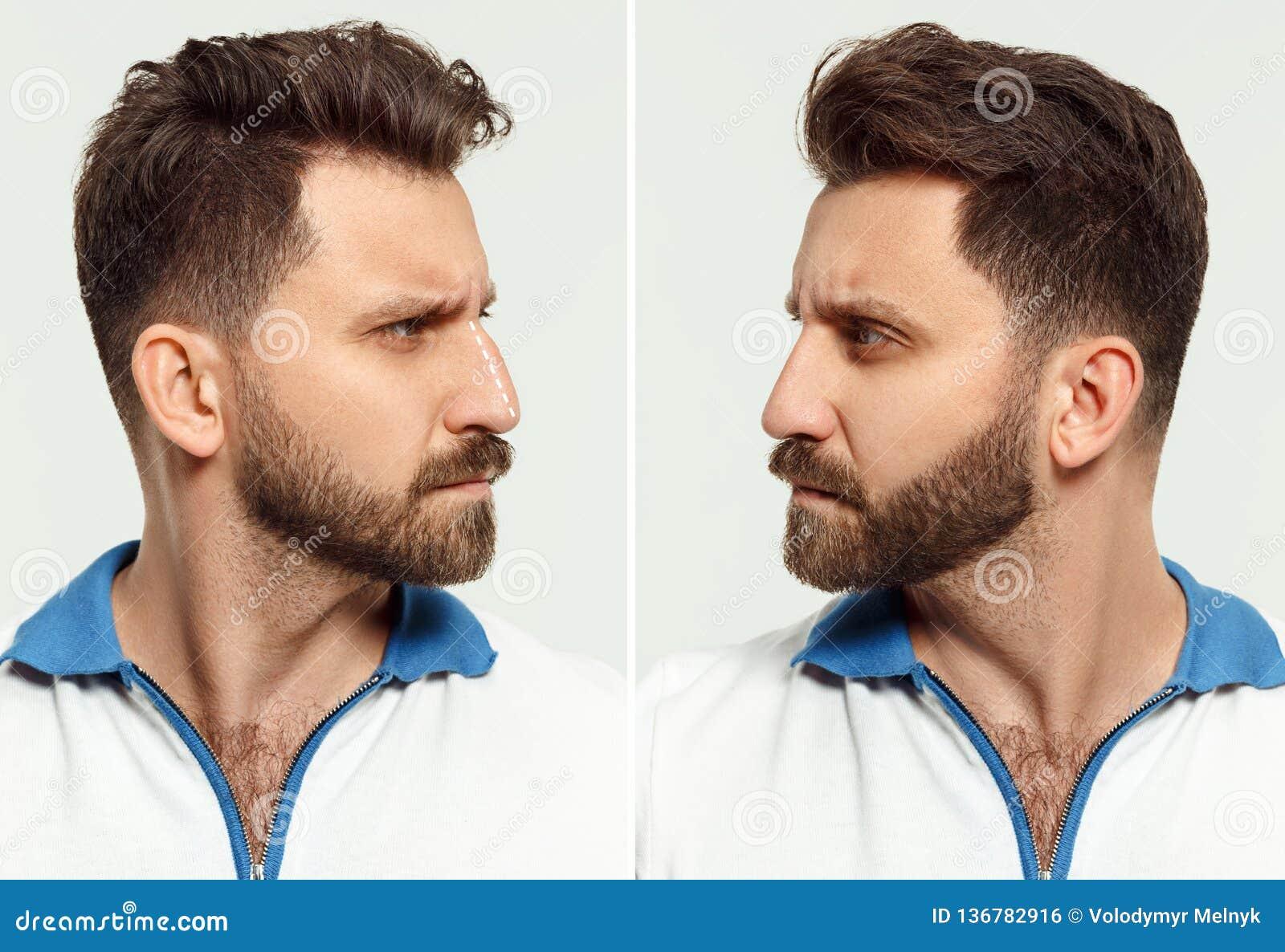 Das männliche Gesicht vor und nach kosmetischer Nasenchirurgie in weißem mit buntem Kranz auf Kopf