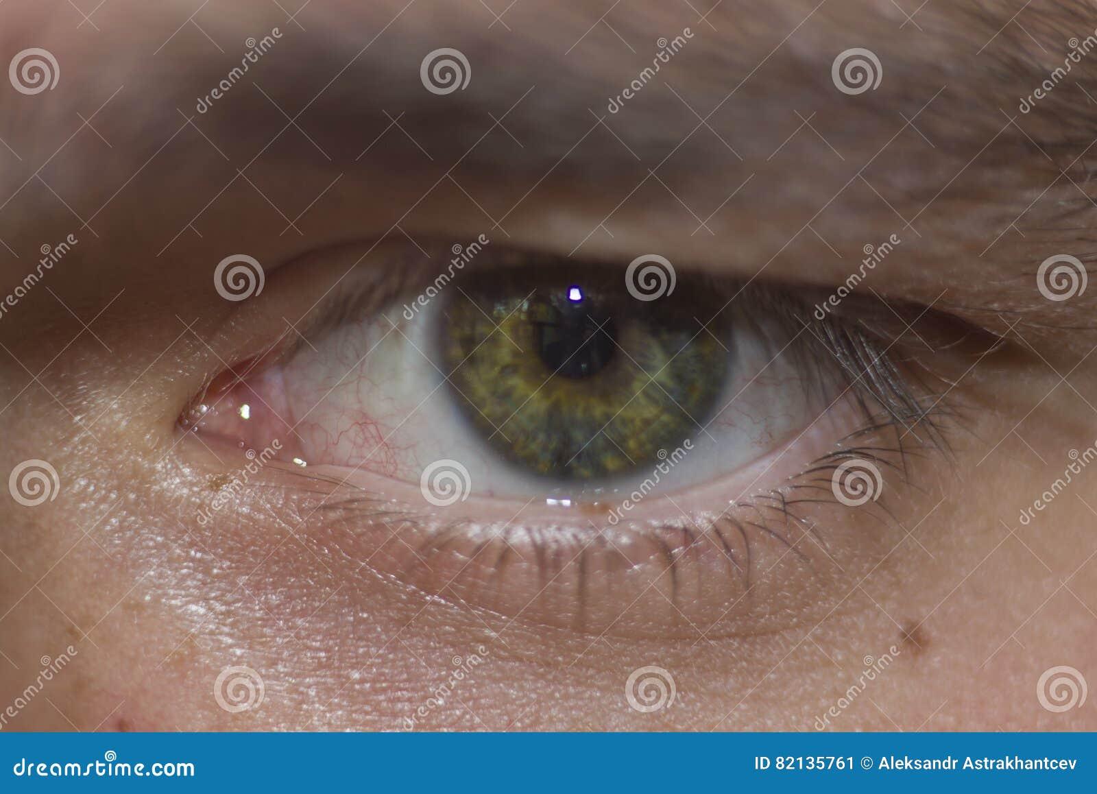 Das Menschliche Auge Betrachtet Mich Stockbild - Bild von haare ...
