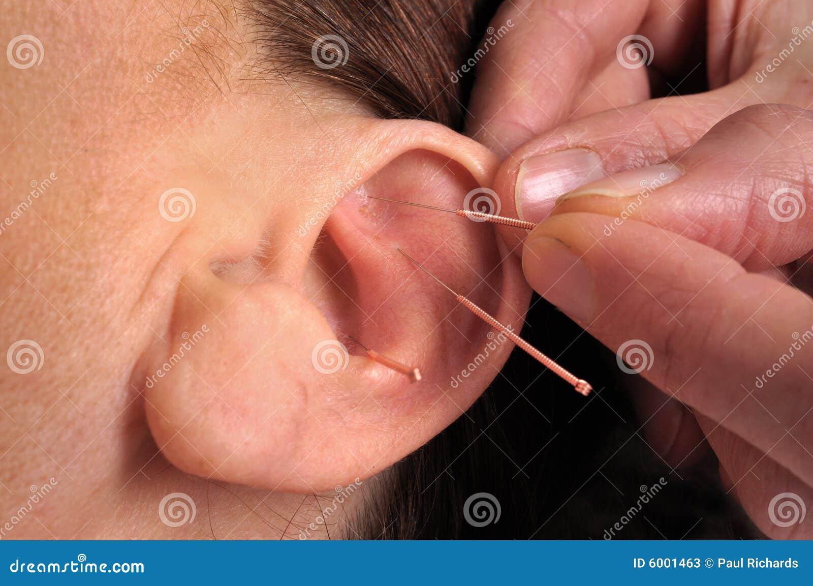 De acupunctuur van het oor